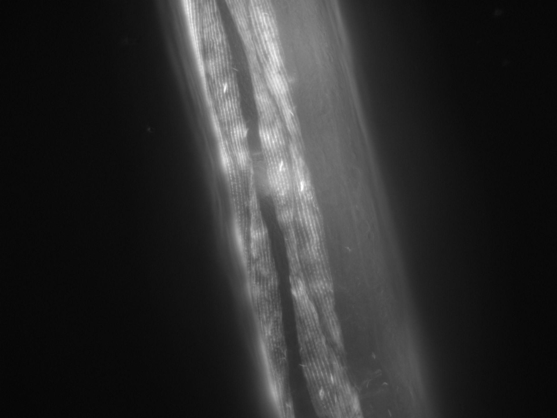 Caenorhabditis elegans (Actin filament) - CIL:1011