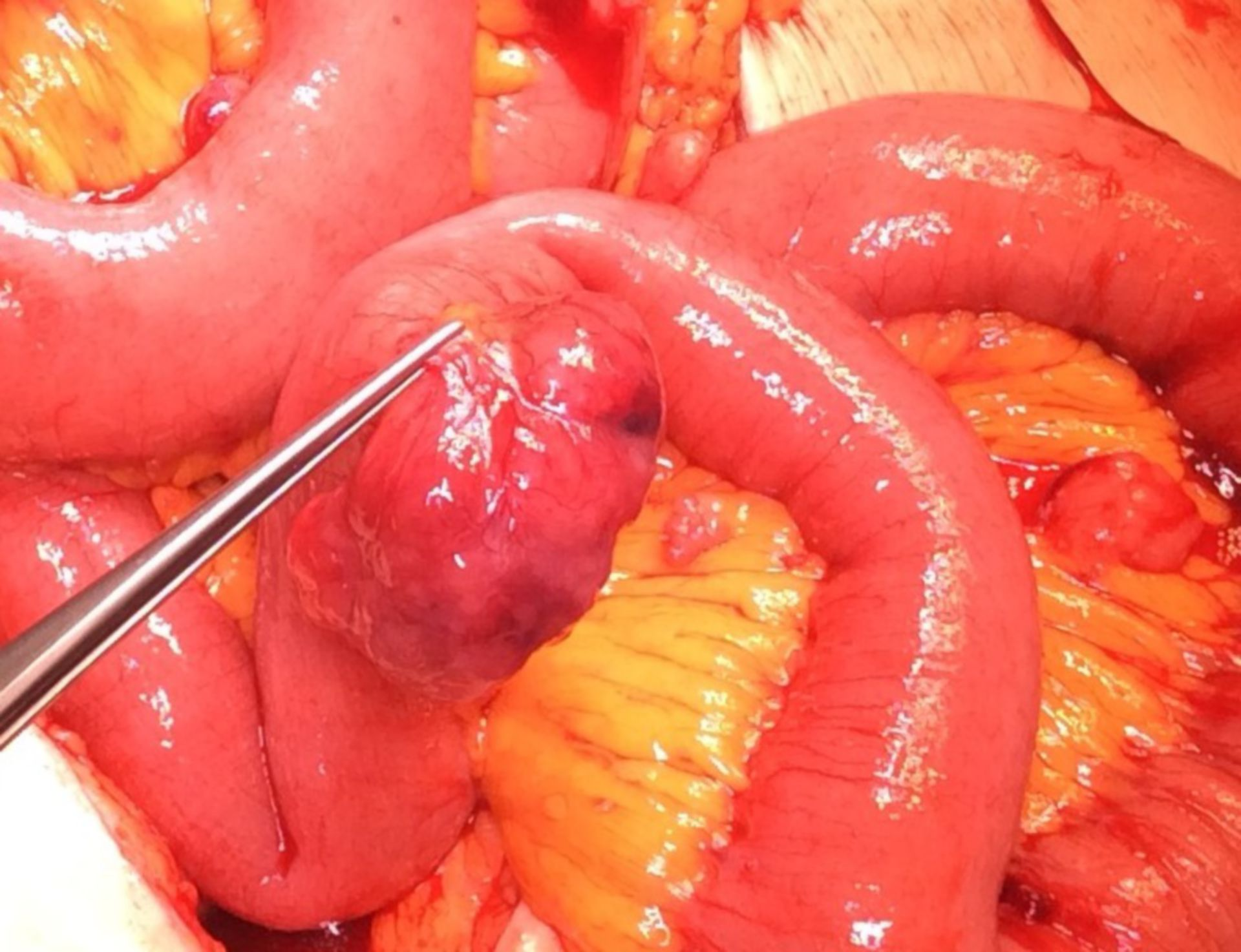 Intestinal tumor -GIST