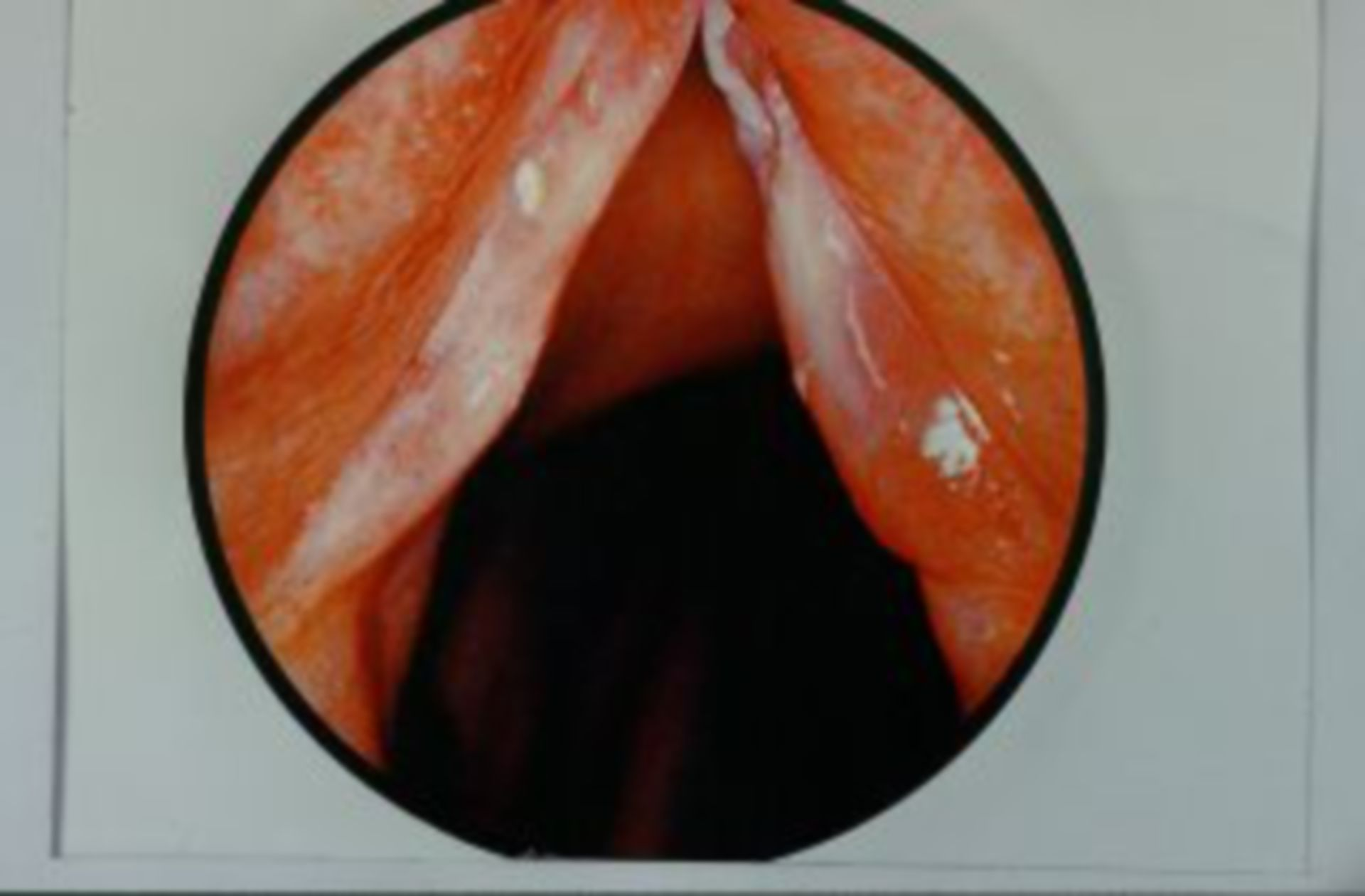 Chronic swelling of the vocal fold