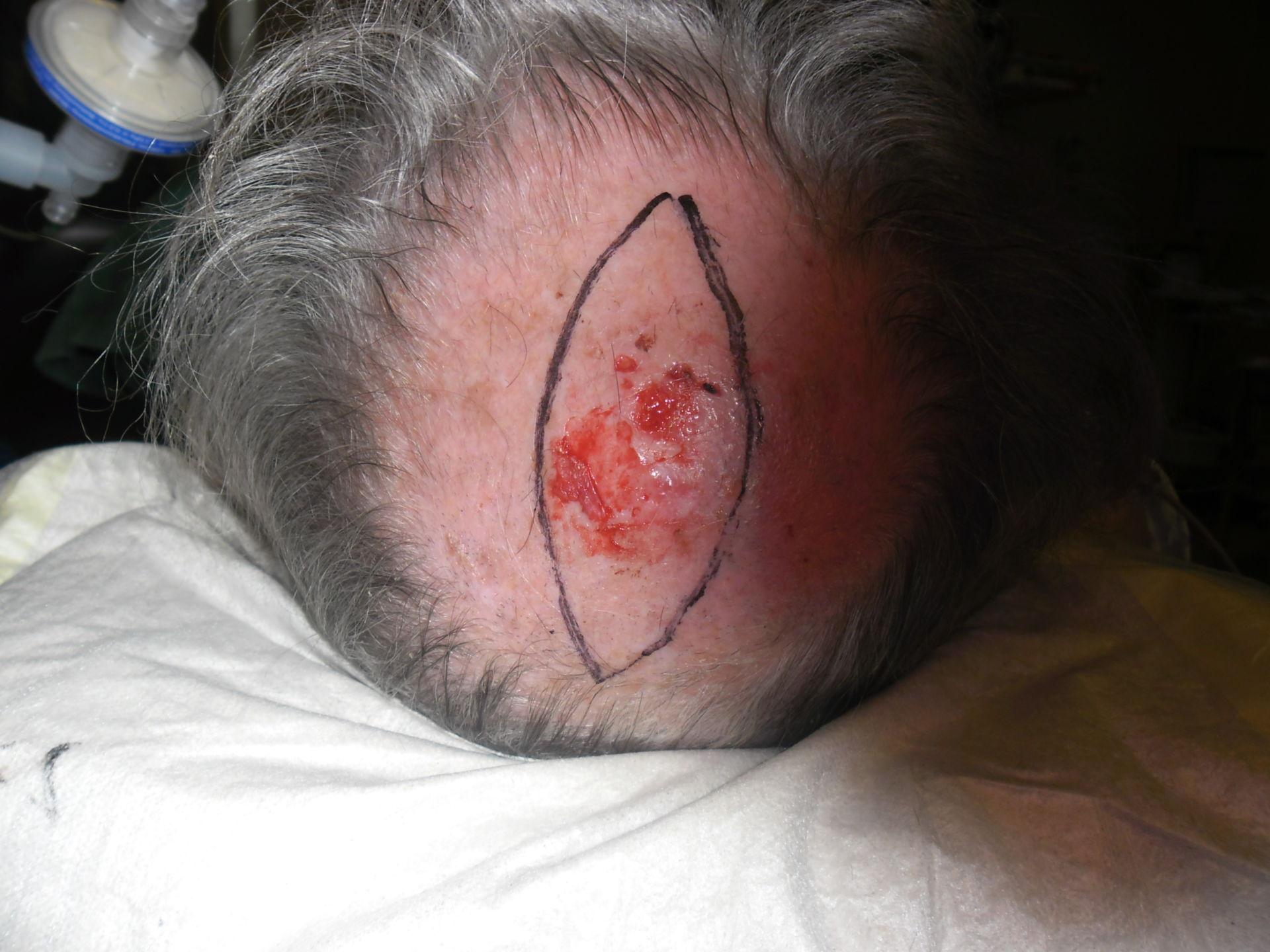 Carcinoma cellule squamose del cuoio capelluto