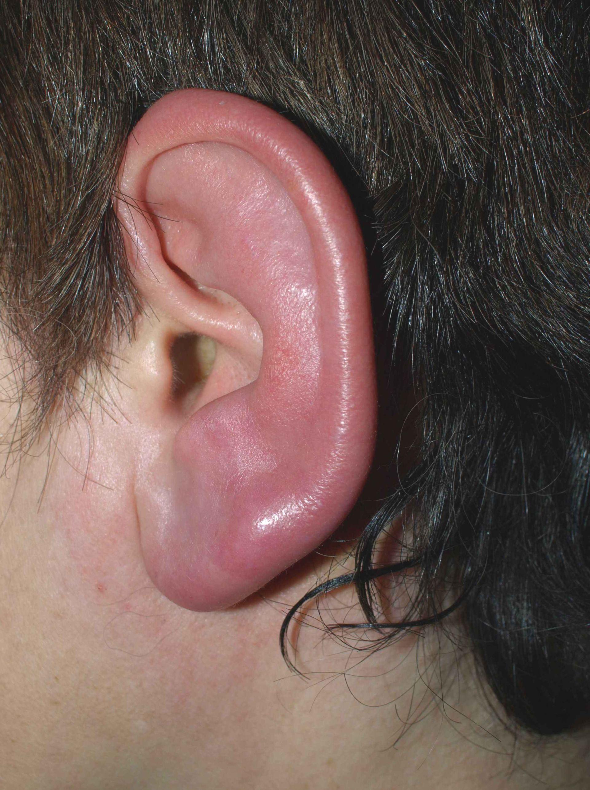 Erisipela de la oreja