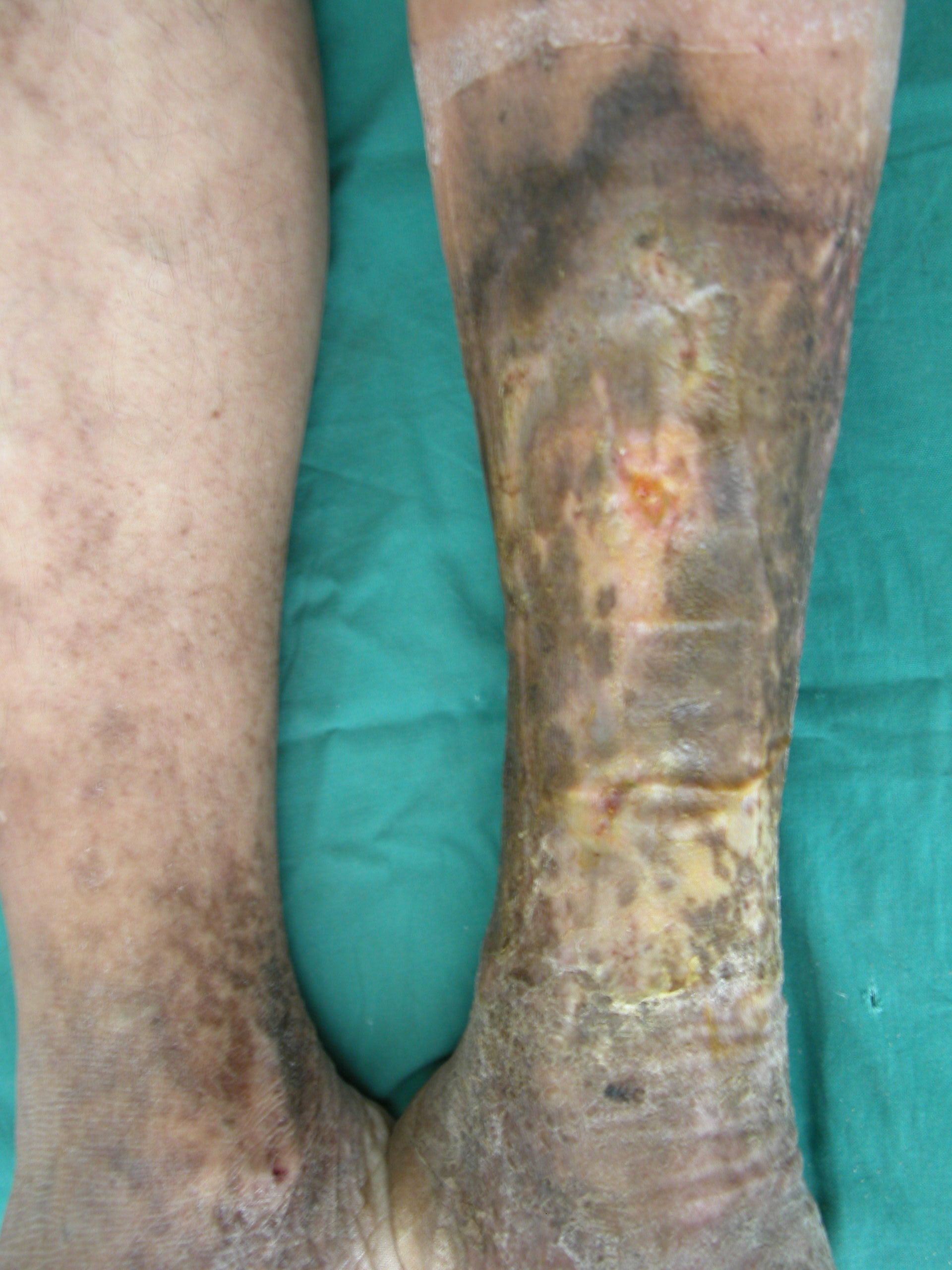 Vene varicose con ulcera guarite. Formazione di croste, iperpigmentazione, curata dal Dott. Ykshim. S Yonsei ospedale Seoul, Corea.