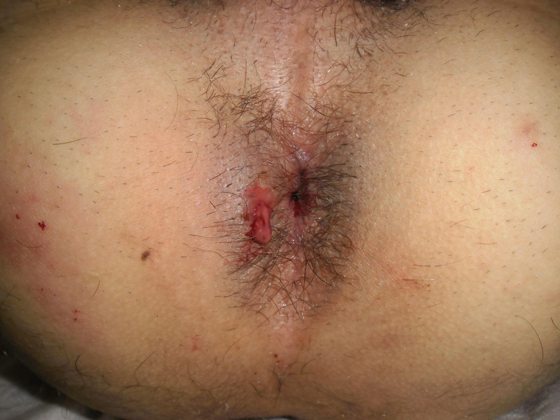 Morbus Crohn bedingter Analabszess