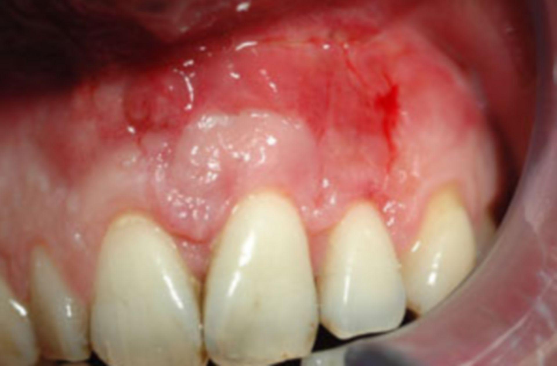 Intraoraler Befund mit ausgeprägter Zahnfleischentzündung.