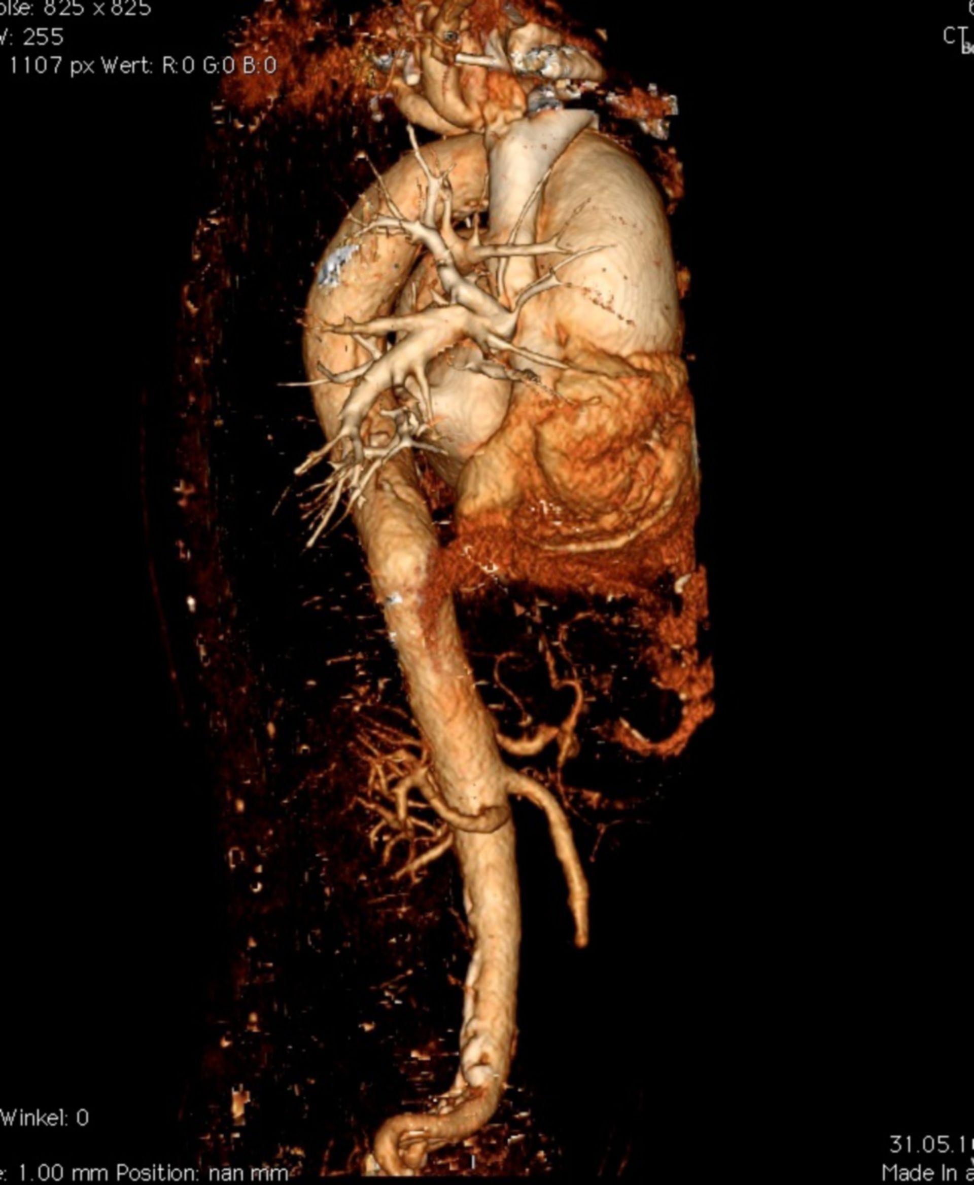 Aortendissektion De Bakey I / Stanford A