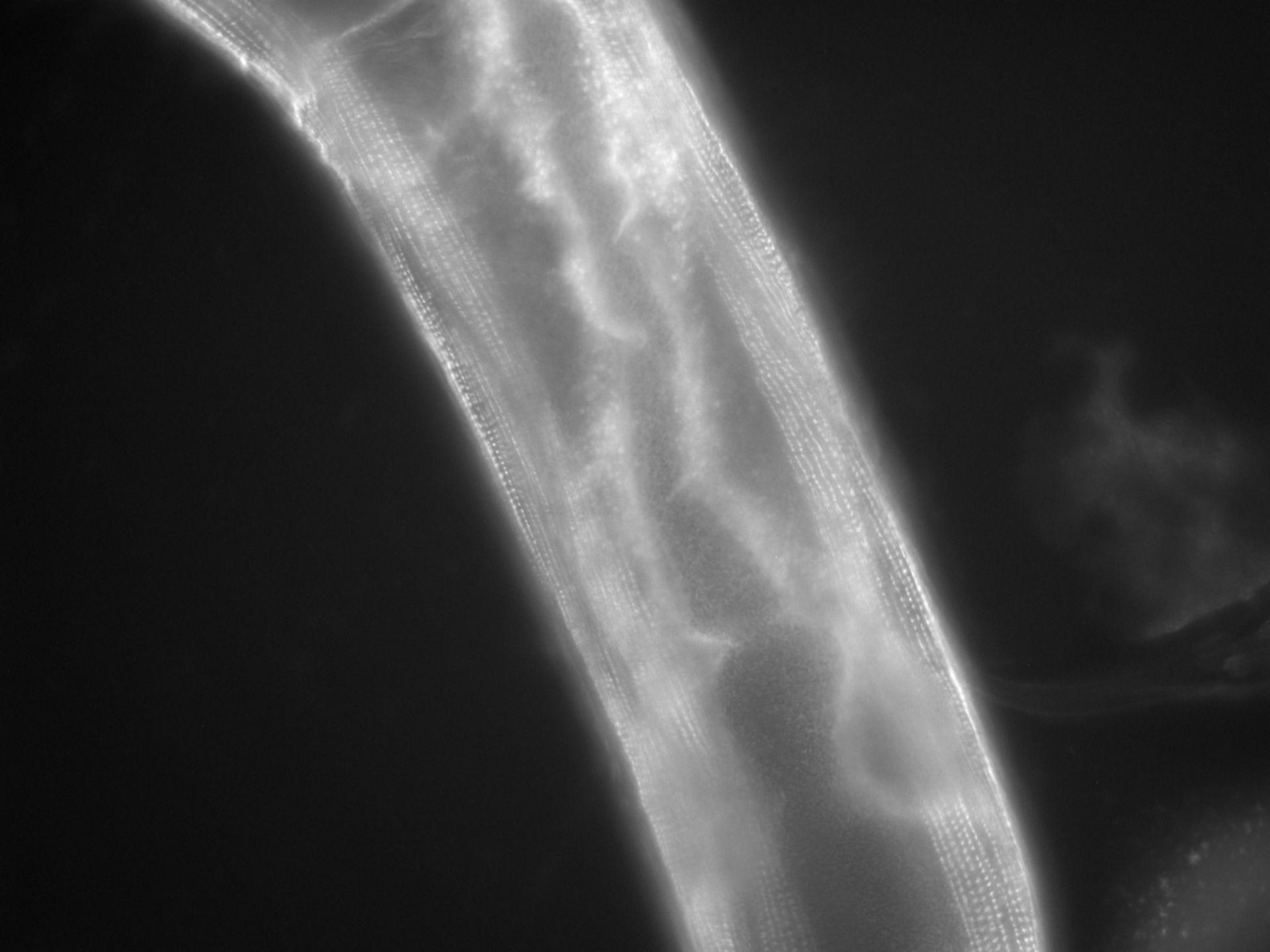 Caenorhabditis elegans (filamento di actina) - CIL:1119