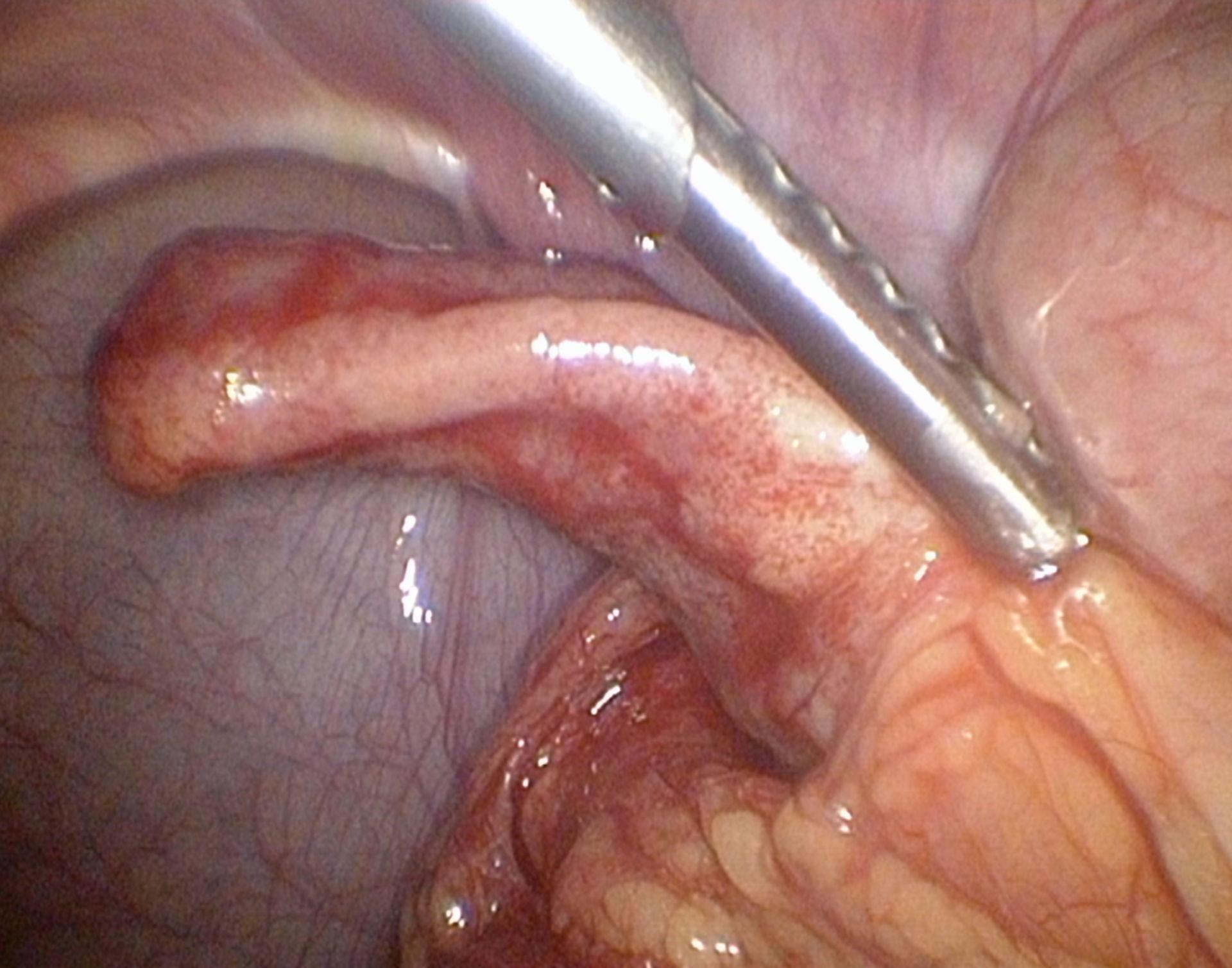 Akute Appendizitis
