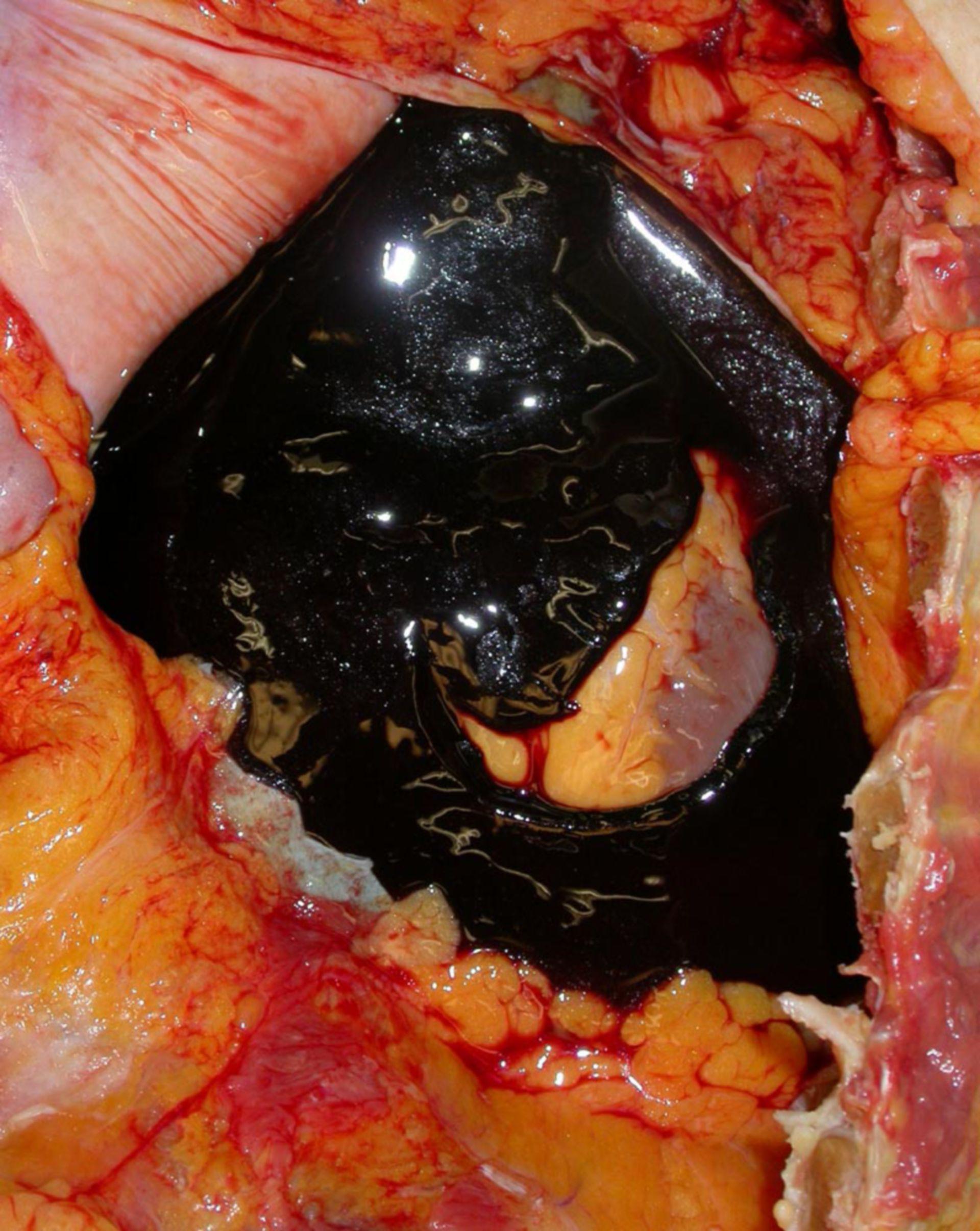 Herzbeuteltamponade