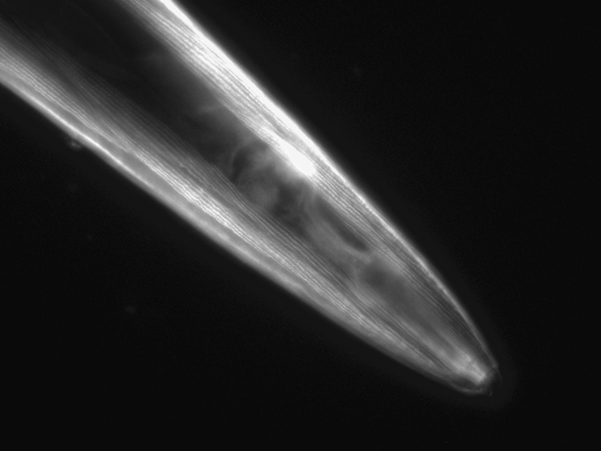 Caenorhabditis elegans (Actin filament) - CIL:1080