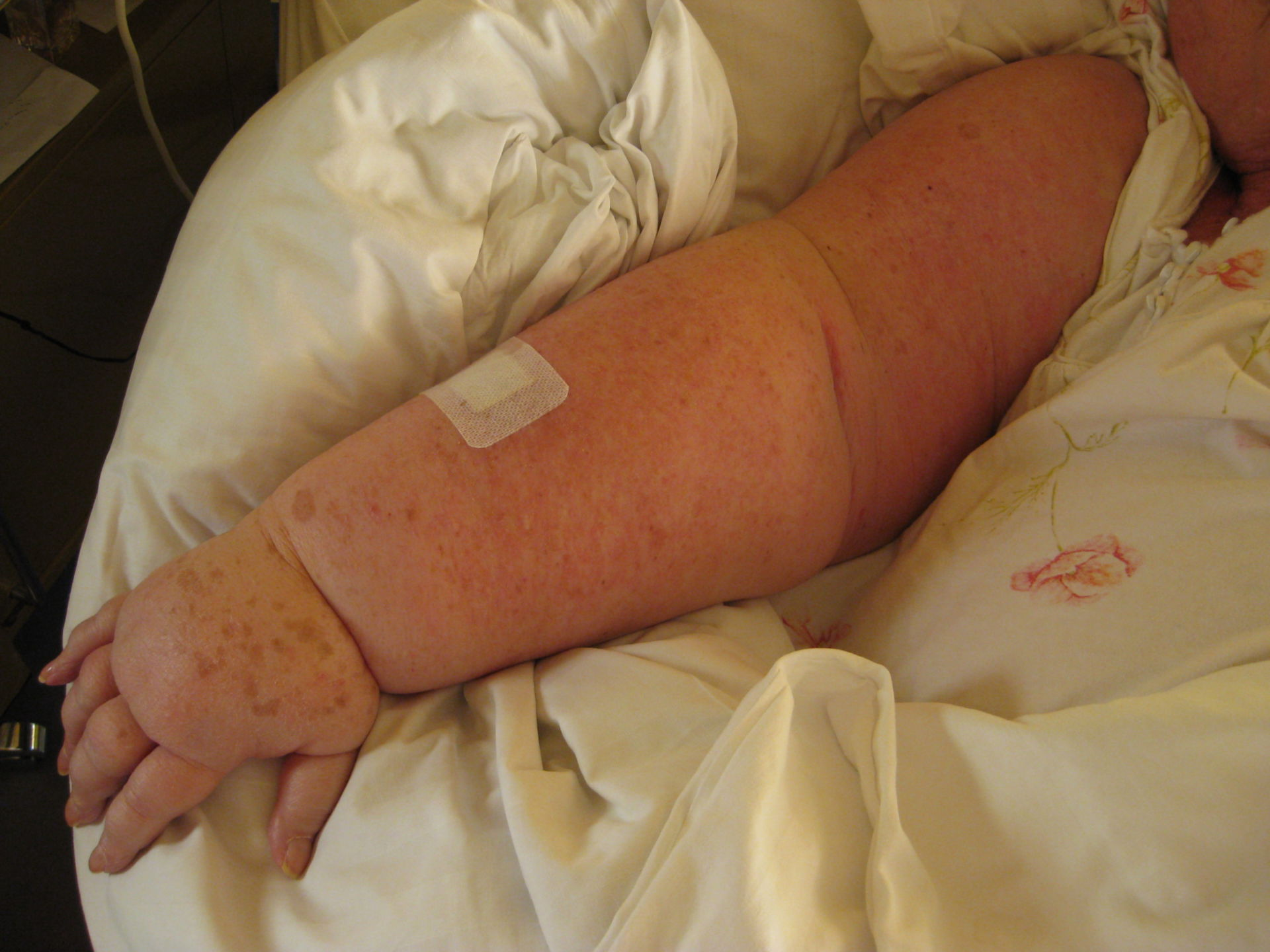 Lymphedema after breast cancer 20 years ago