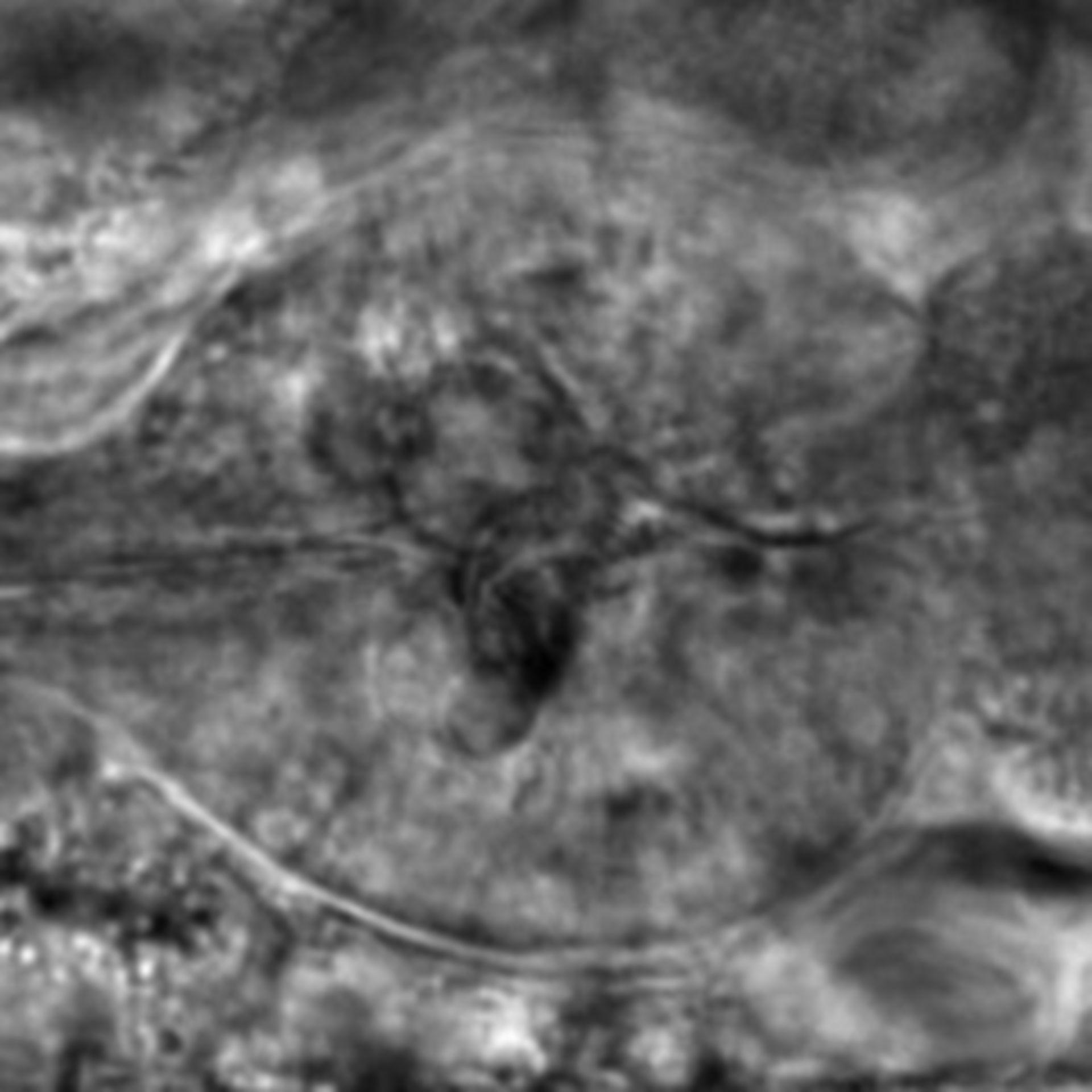 Caenorhabditis elegans - CIL:2275