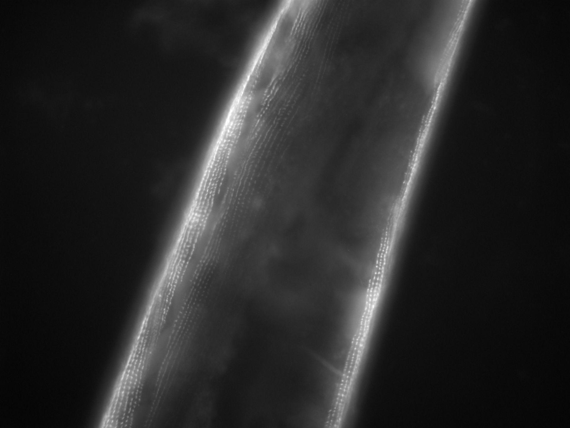 Caenorhabditis elegans (Actin filament) - CIL:1111
