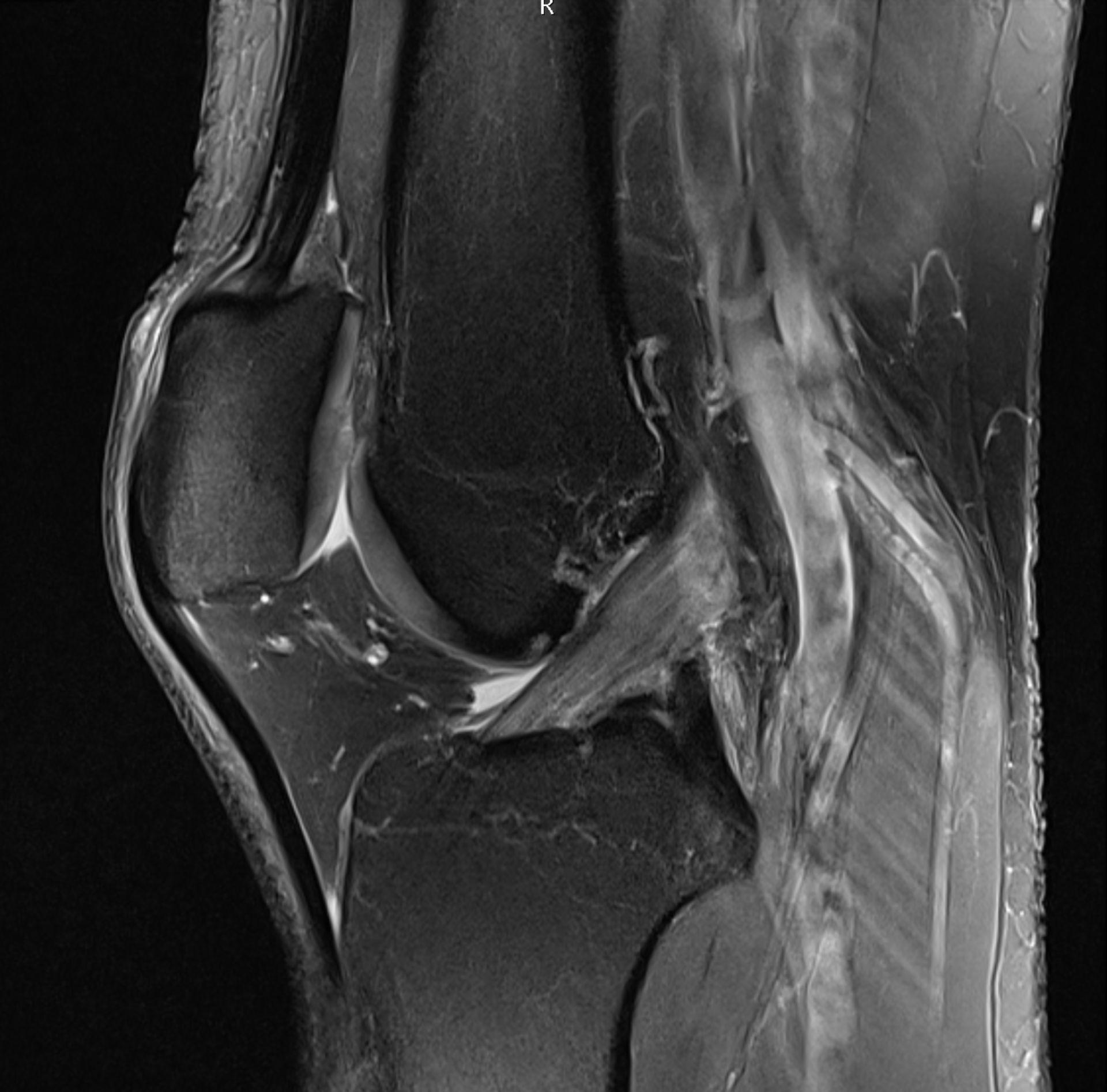 MRT Kniegelenk - Sagittalschnitt
