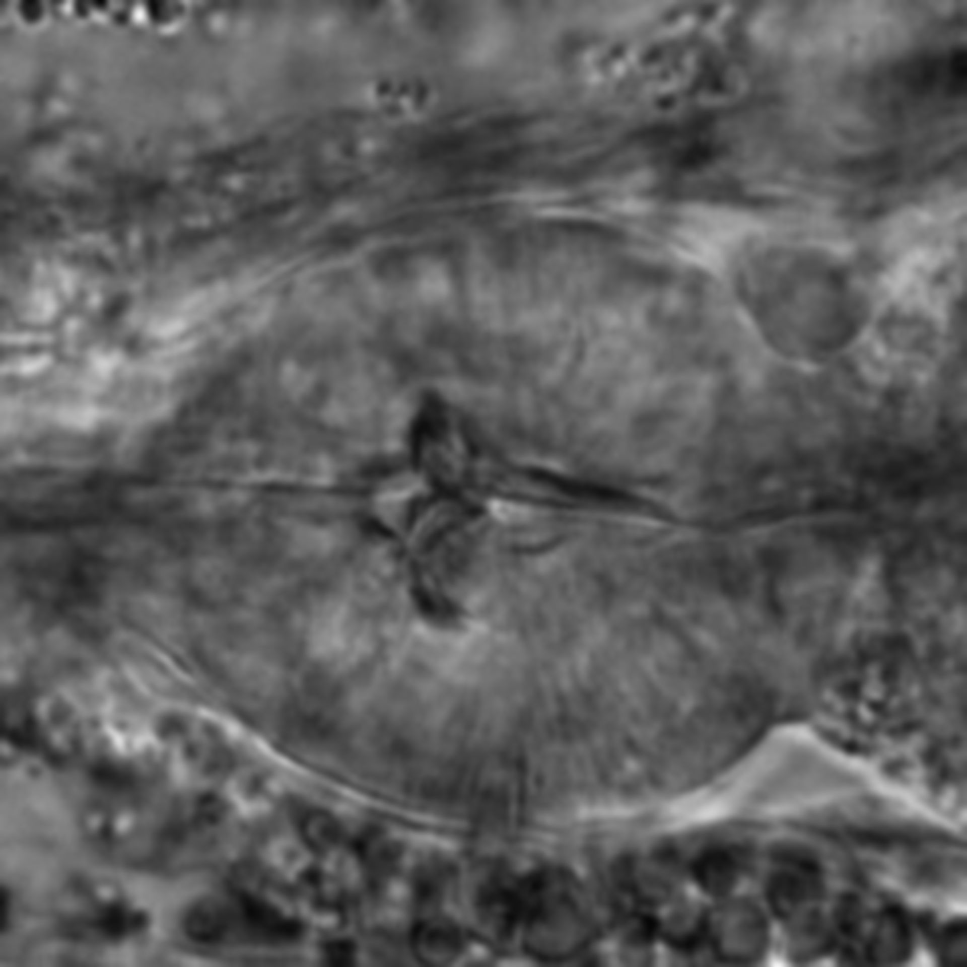 Caenorhabditis elegans - CIL:1707