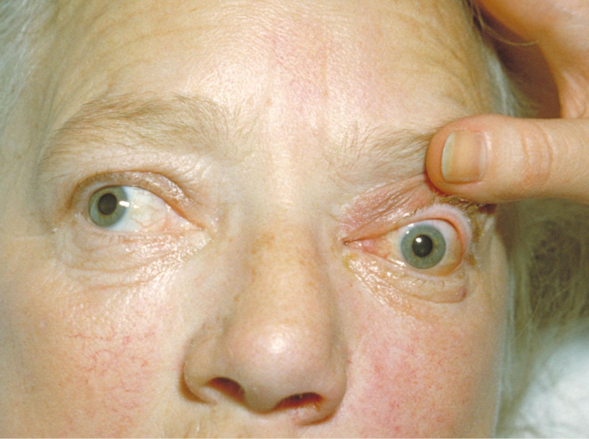 Bilateral exophthalmos