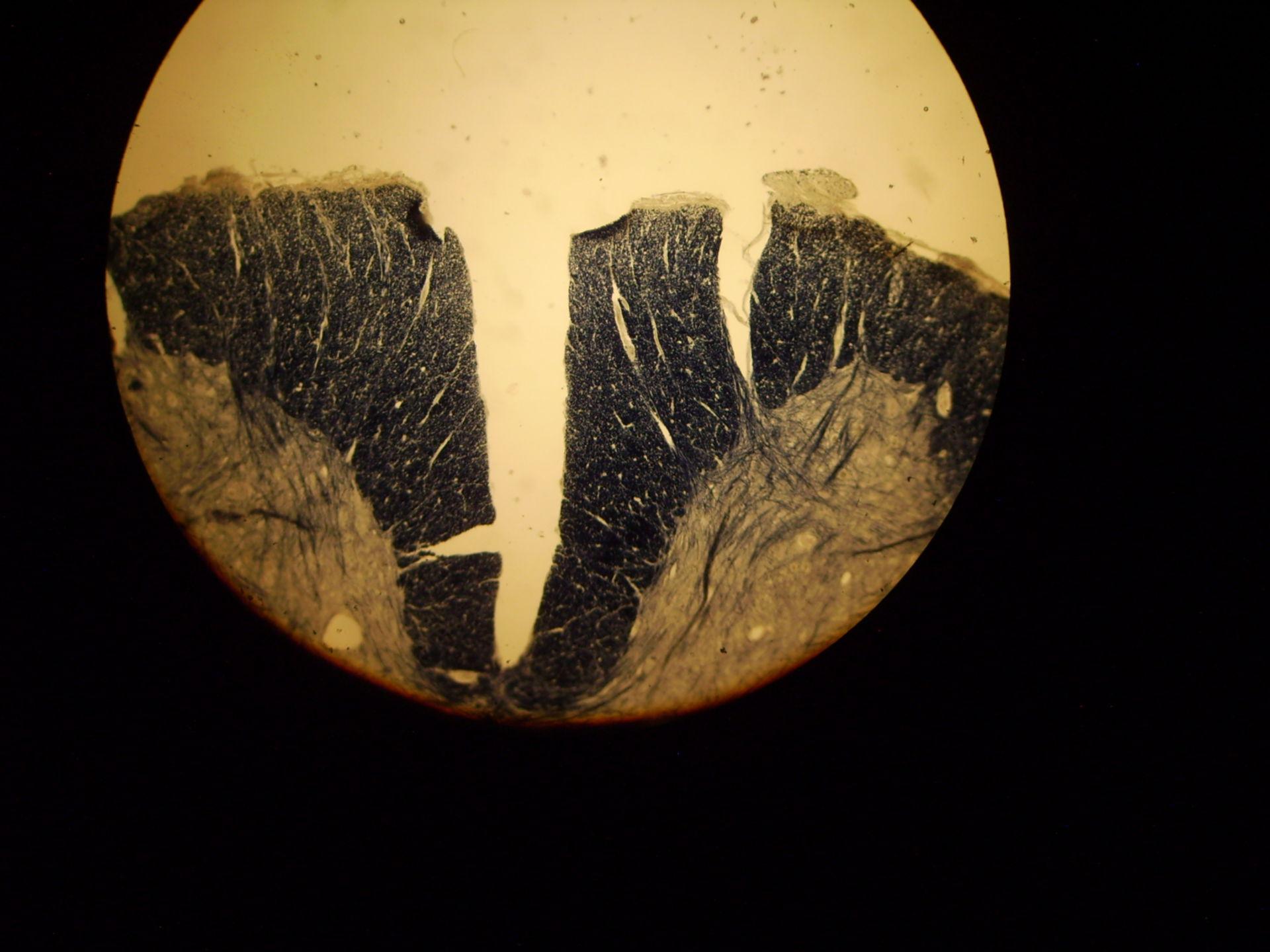 Tabes dorsalis (Lues)