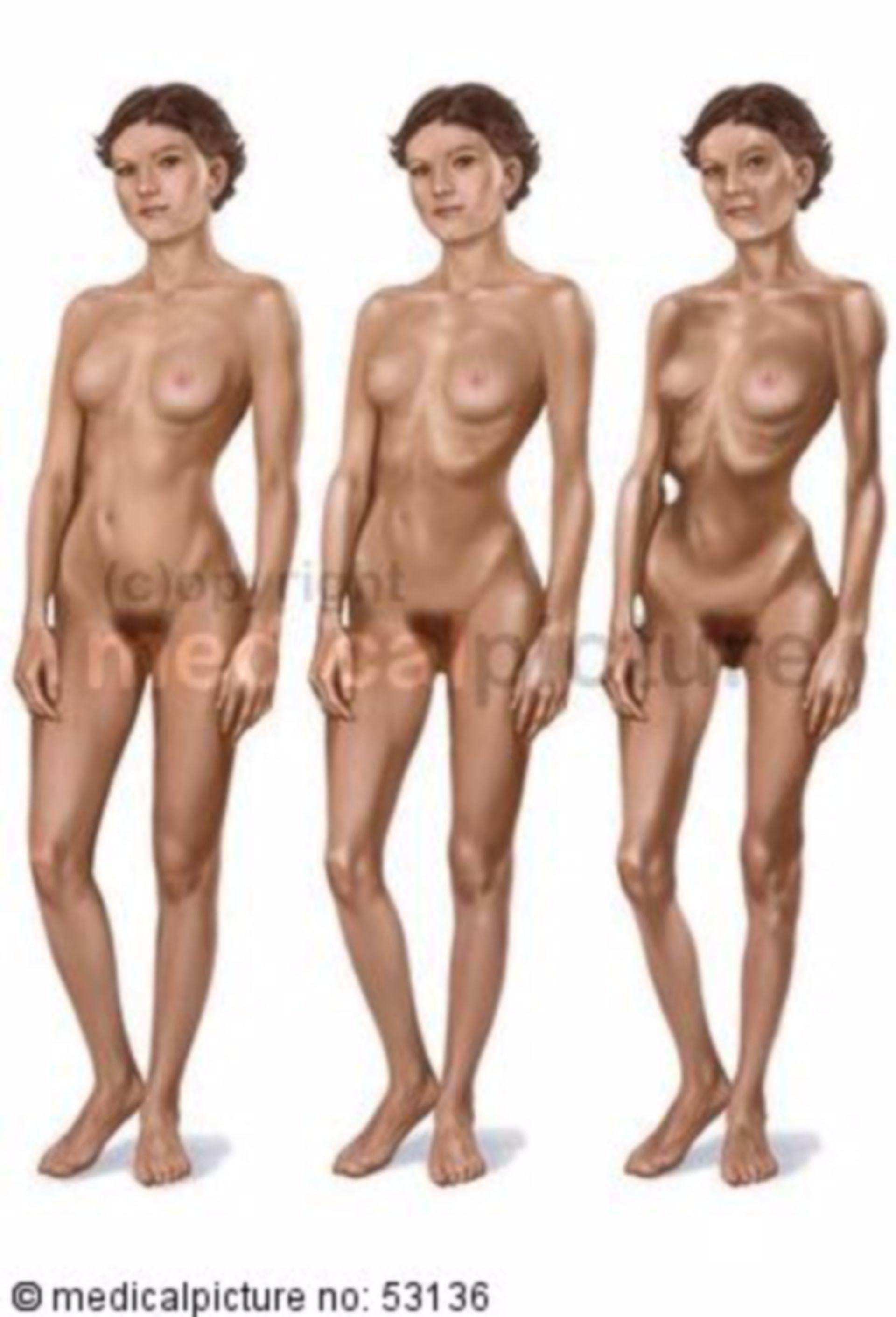 Alteraciones físicas durante la anorexia