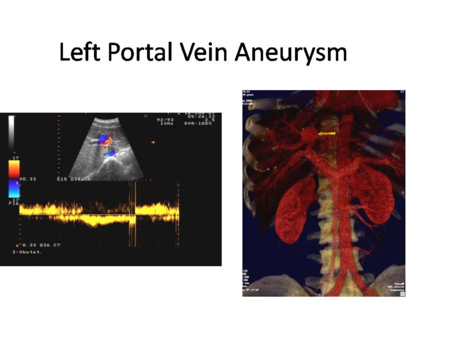 Aneurysma in der linken Vena portae (2)
