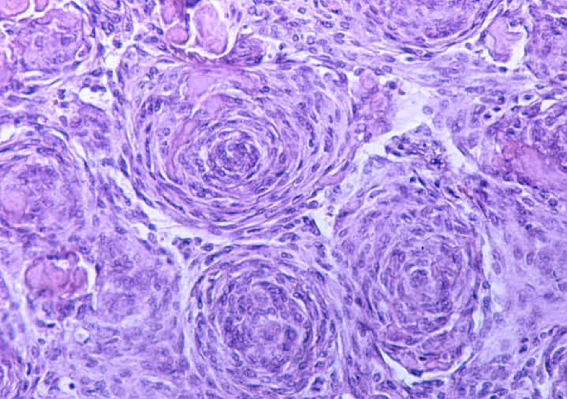 Formazione delle cellule concentrico