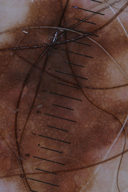 Hautkrebs oder Melanom? Unverdächtiger Naevus!