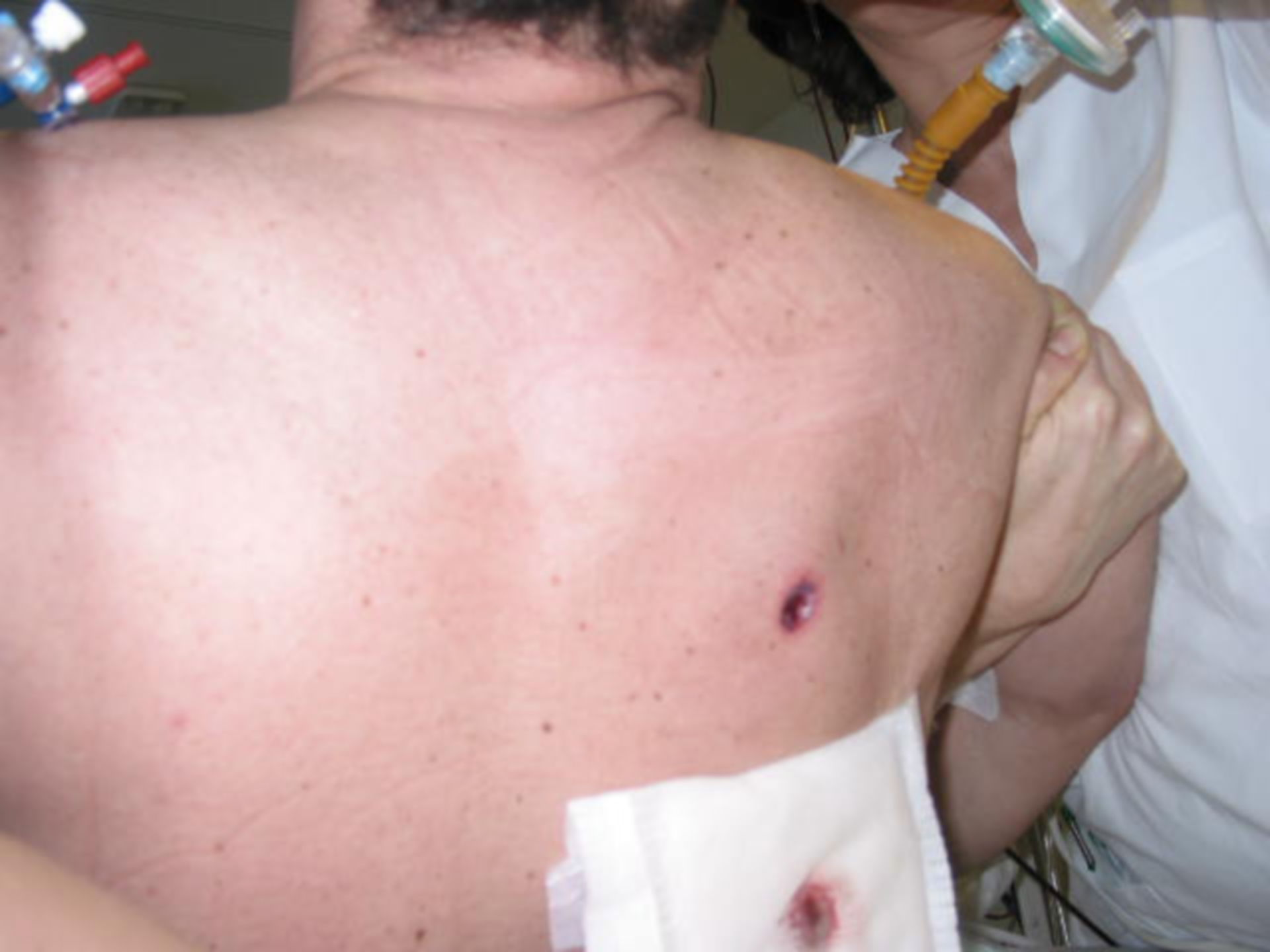 Herida de escopeta - pecho