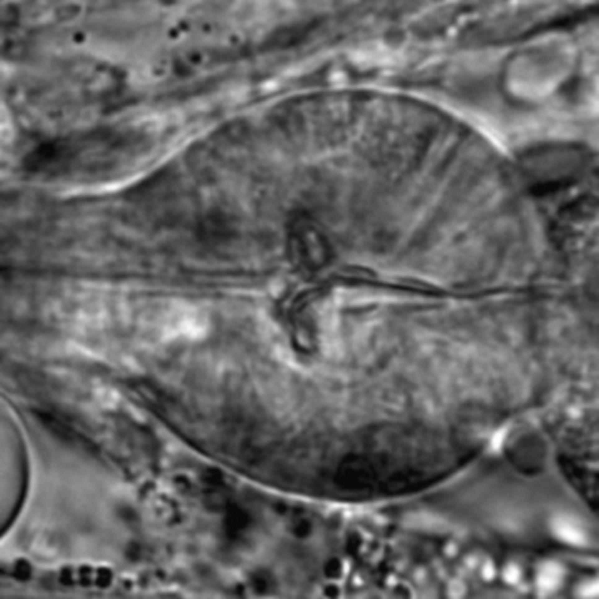 Caenorhabditis elegans - CIL:1710