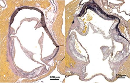 Die histologische Färbung der Aortenwurzel zeigt rechts die verstärkte Plaquebildung ohne Nox4. © Uniklinikum Dresden