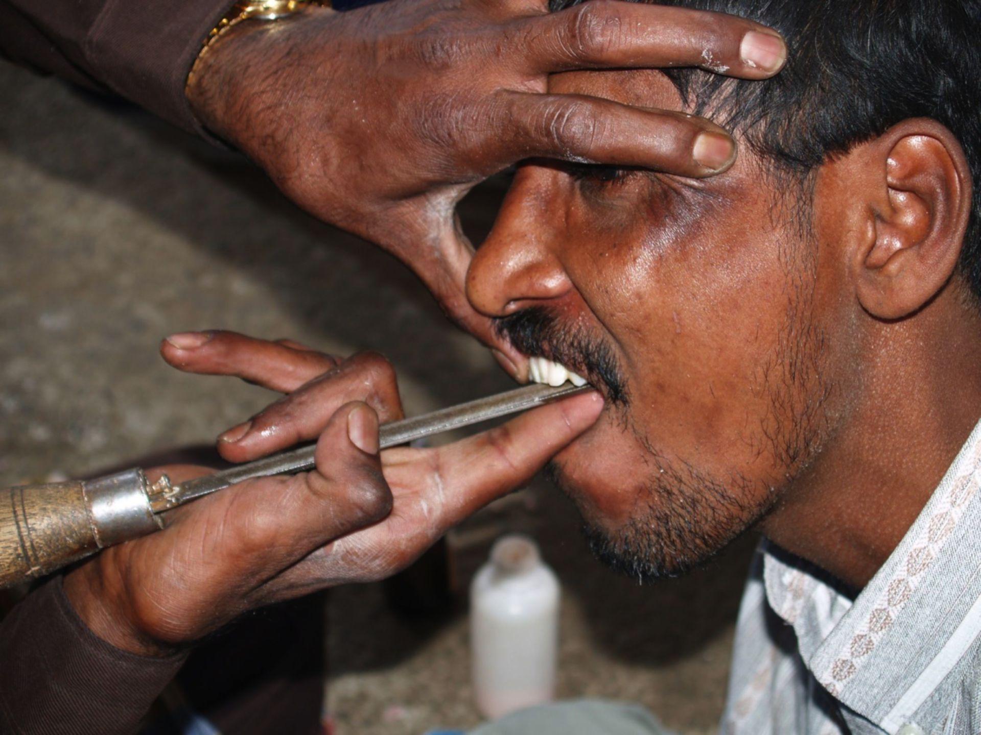 Dentista che sta limando alcuni denti