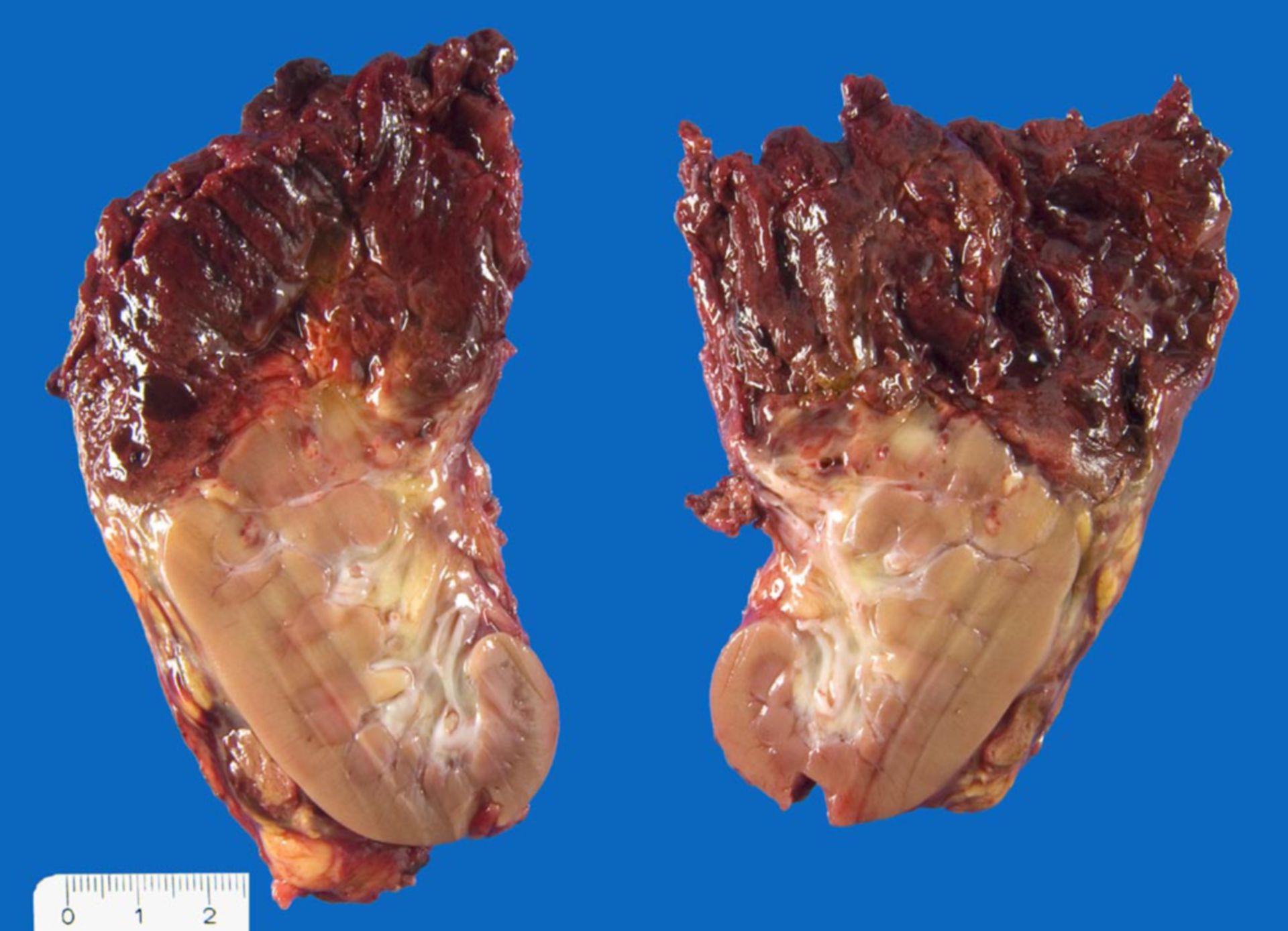 Hämorrhagisches und nekrotisches Nephroblastom mit Ruptur