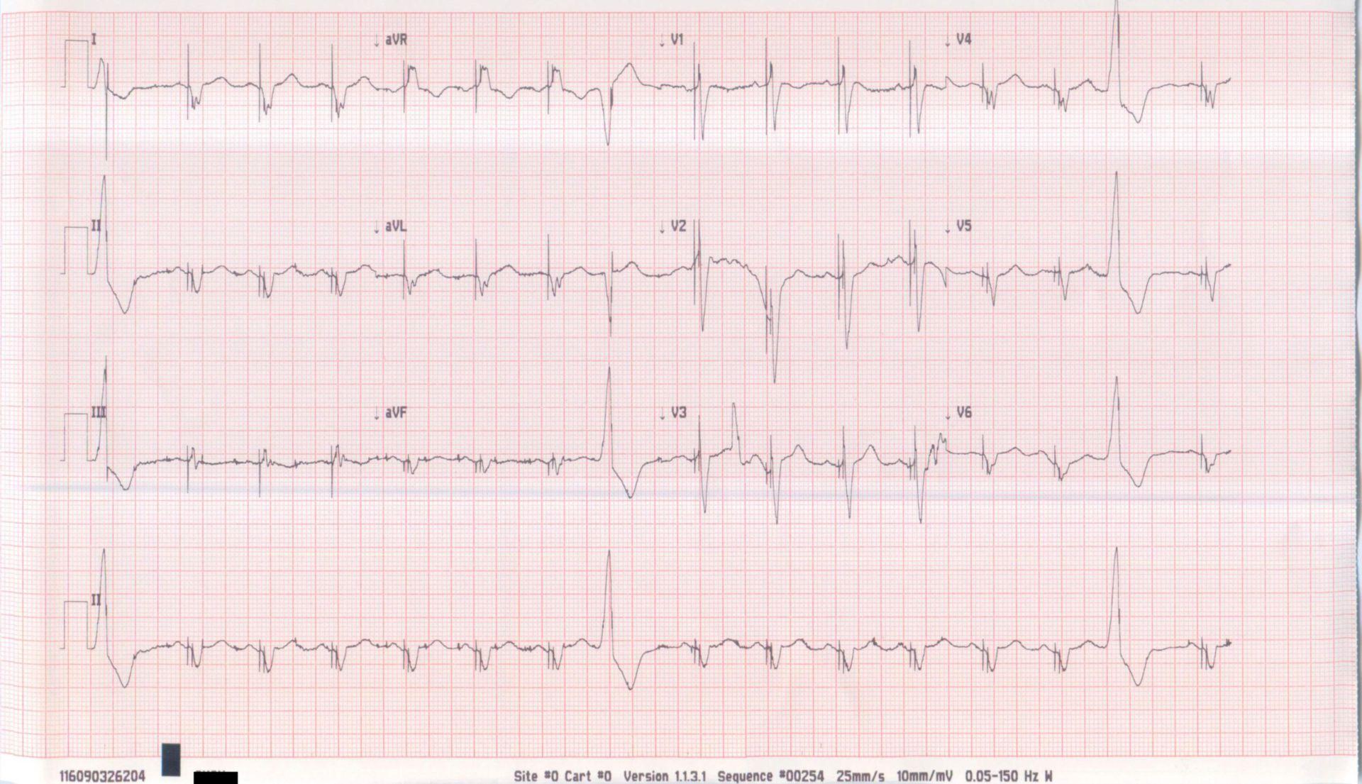 EKG Schrittmacher Bild 2