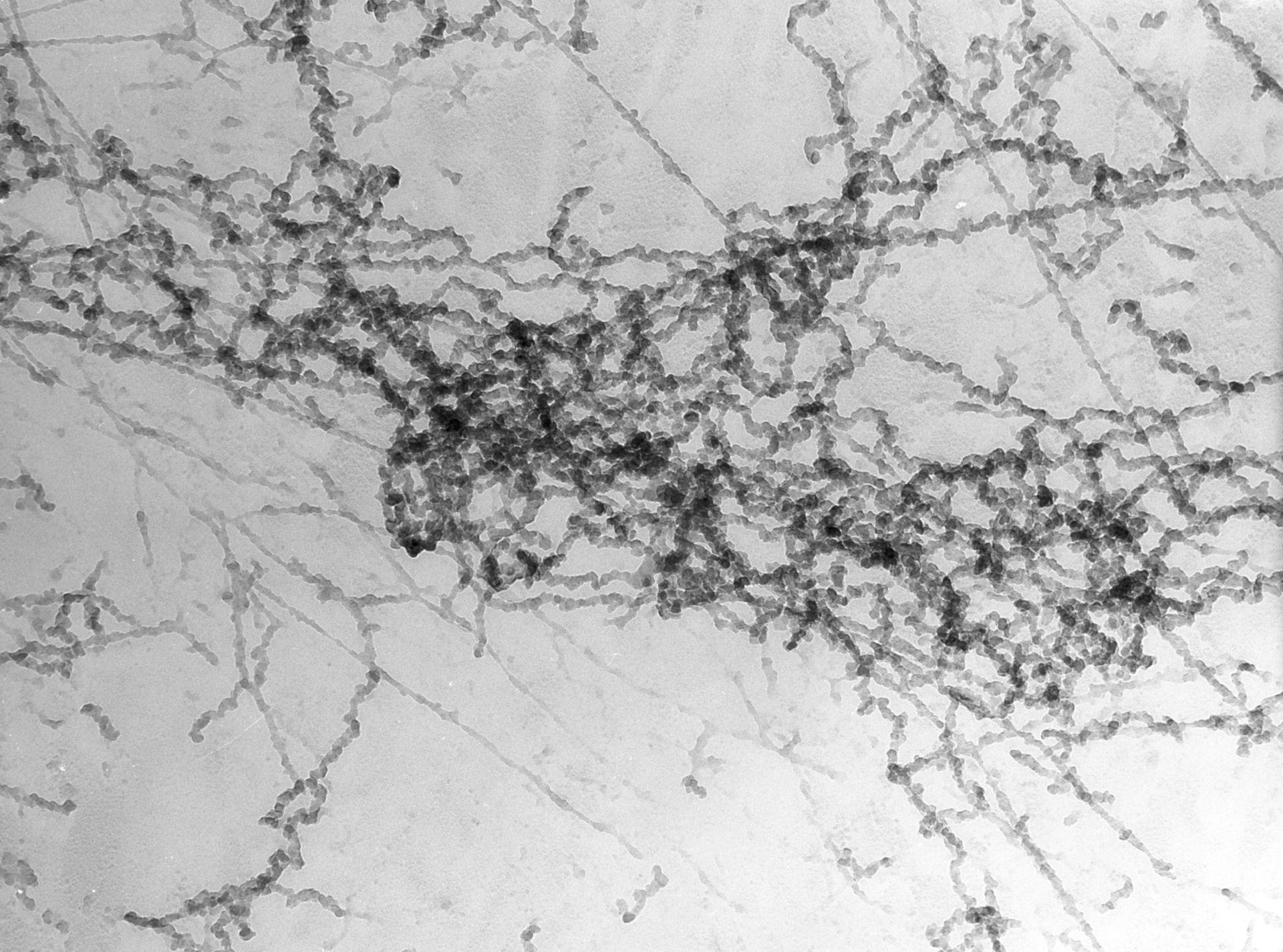 Notopthalmus viridescence (Nuclear chromatin) - CIL:10081