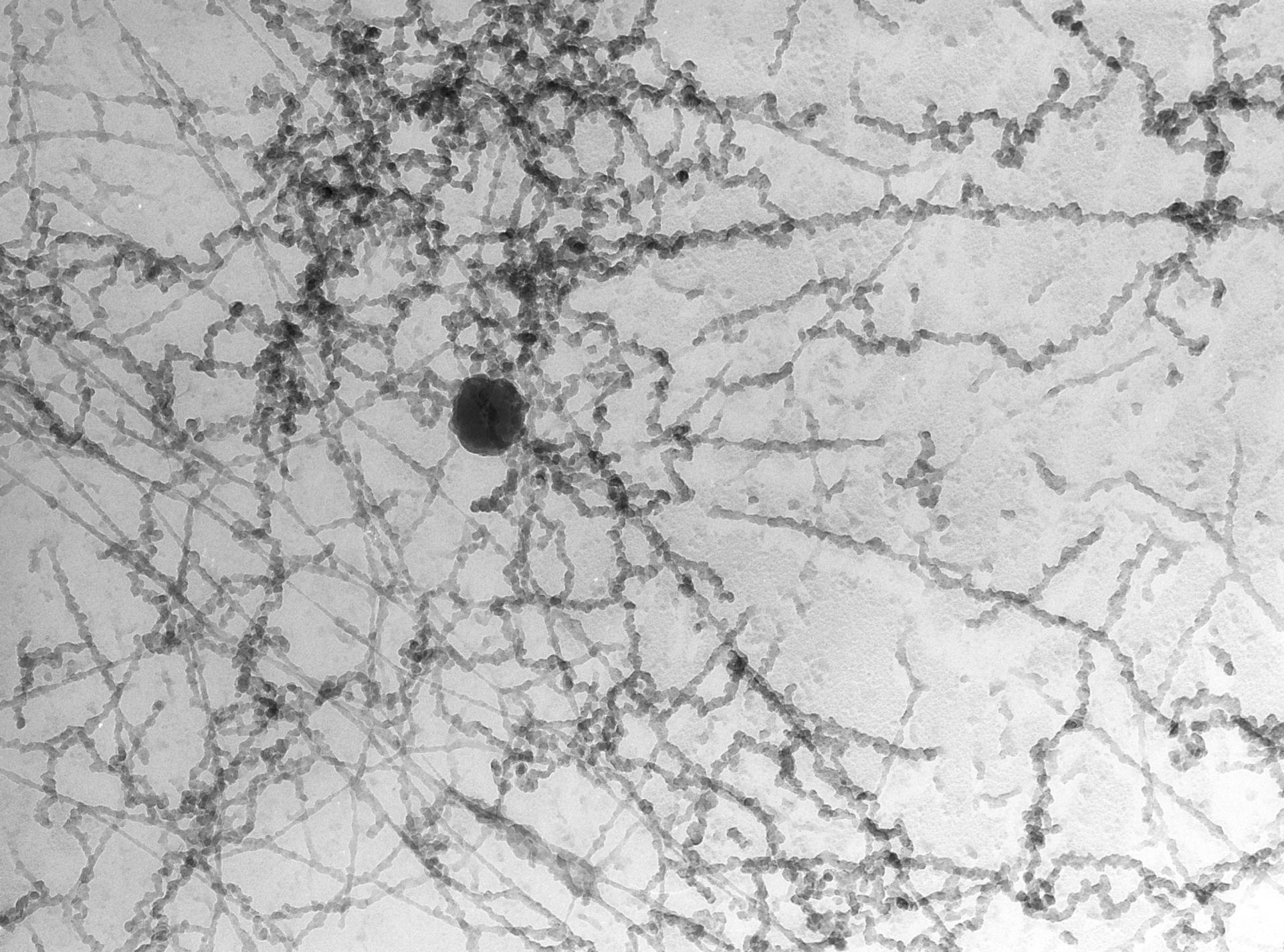 Notopthalmus viridescence (Nuclear chromatin) - CIL:10088