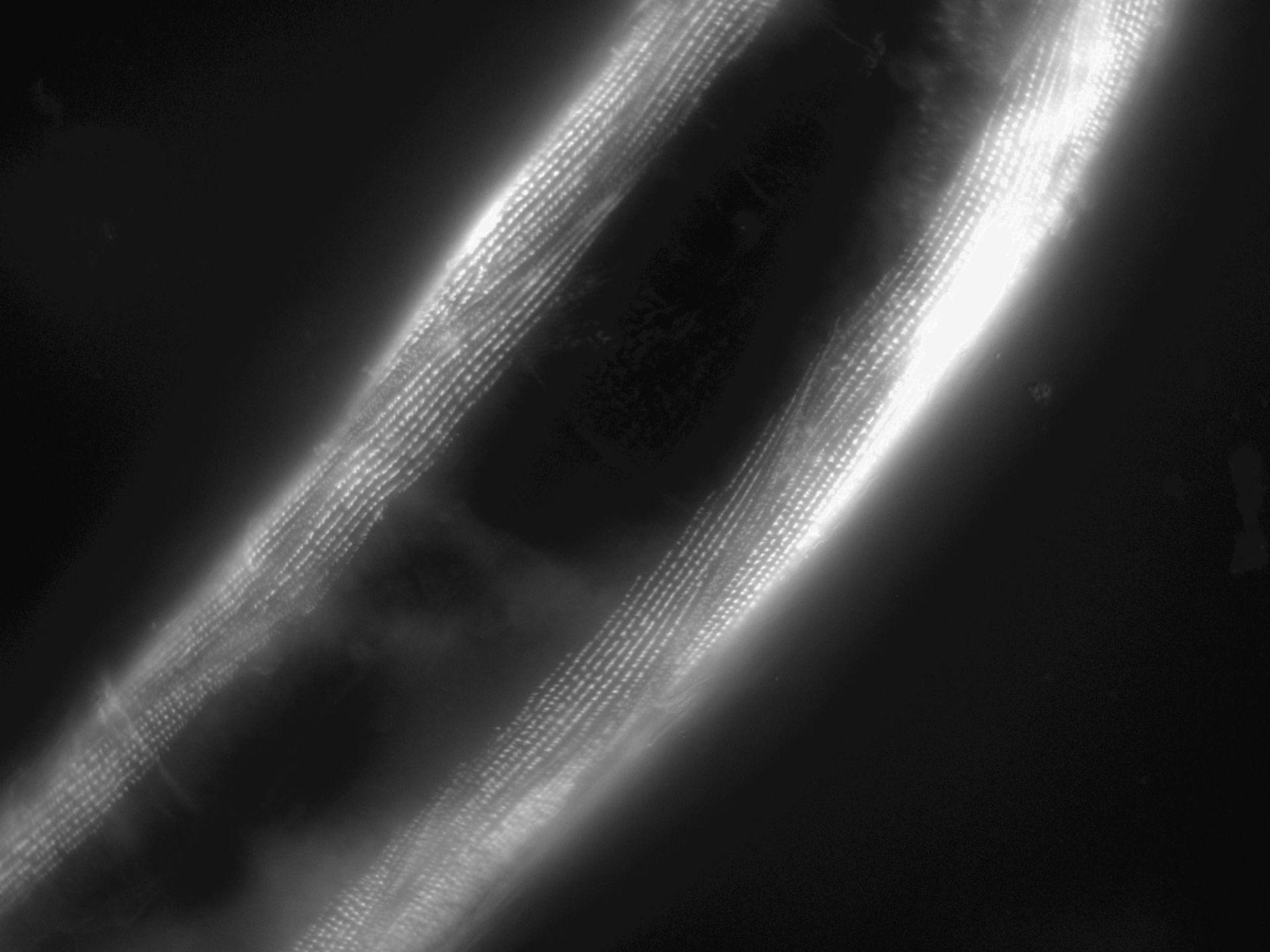 Caenorhabditis elegans (Actin filament) - CIL:1183