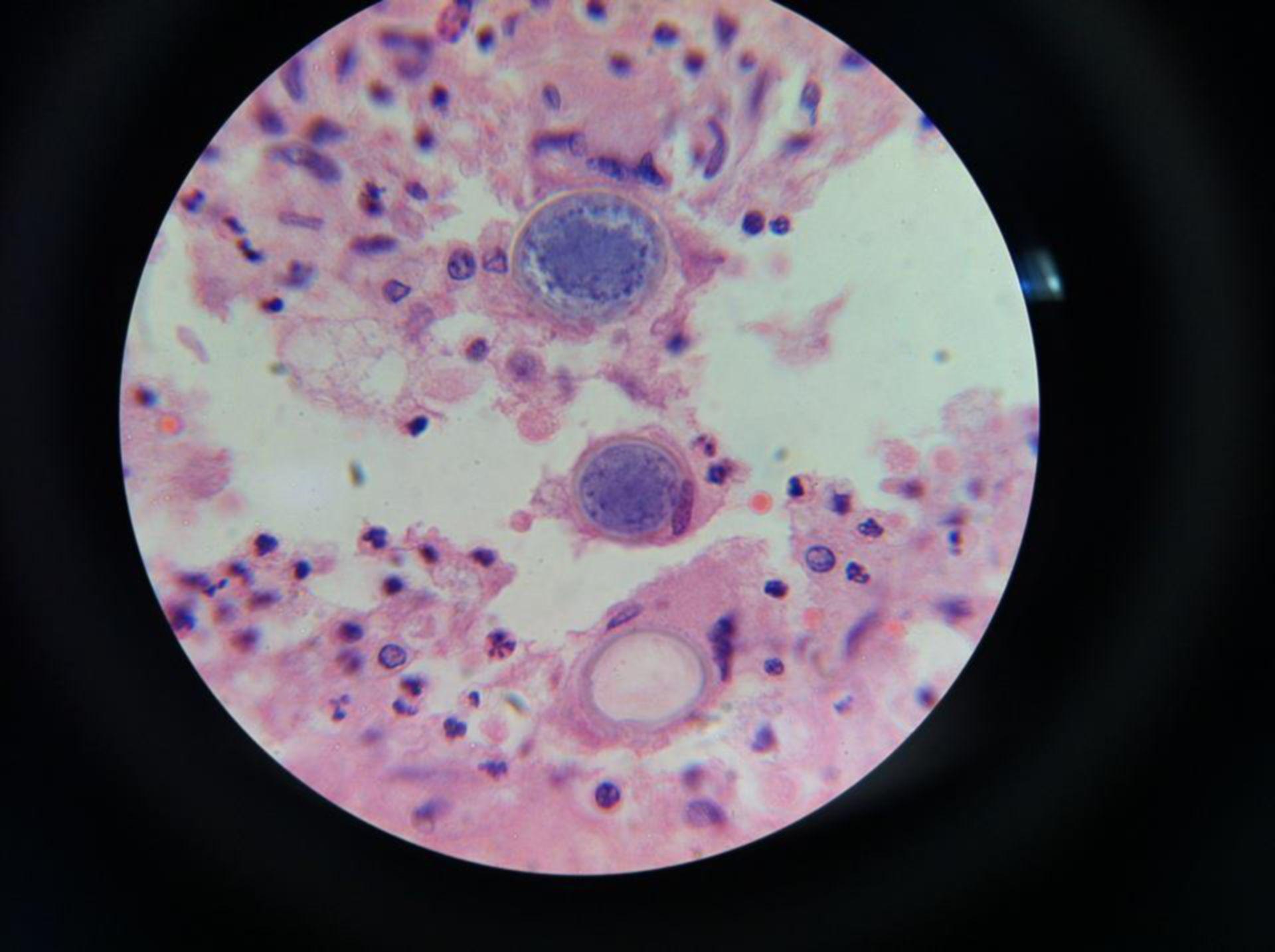 Perlati con endospore coccidioidomicosis