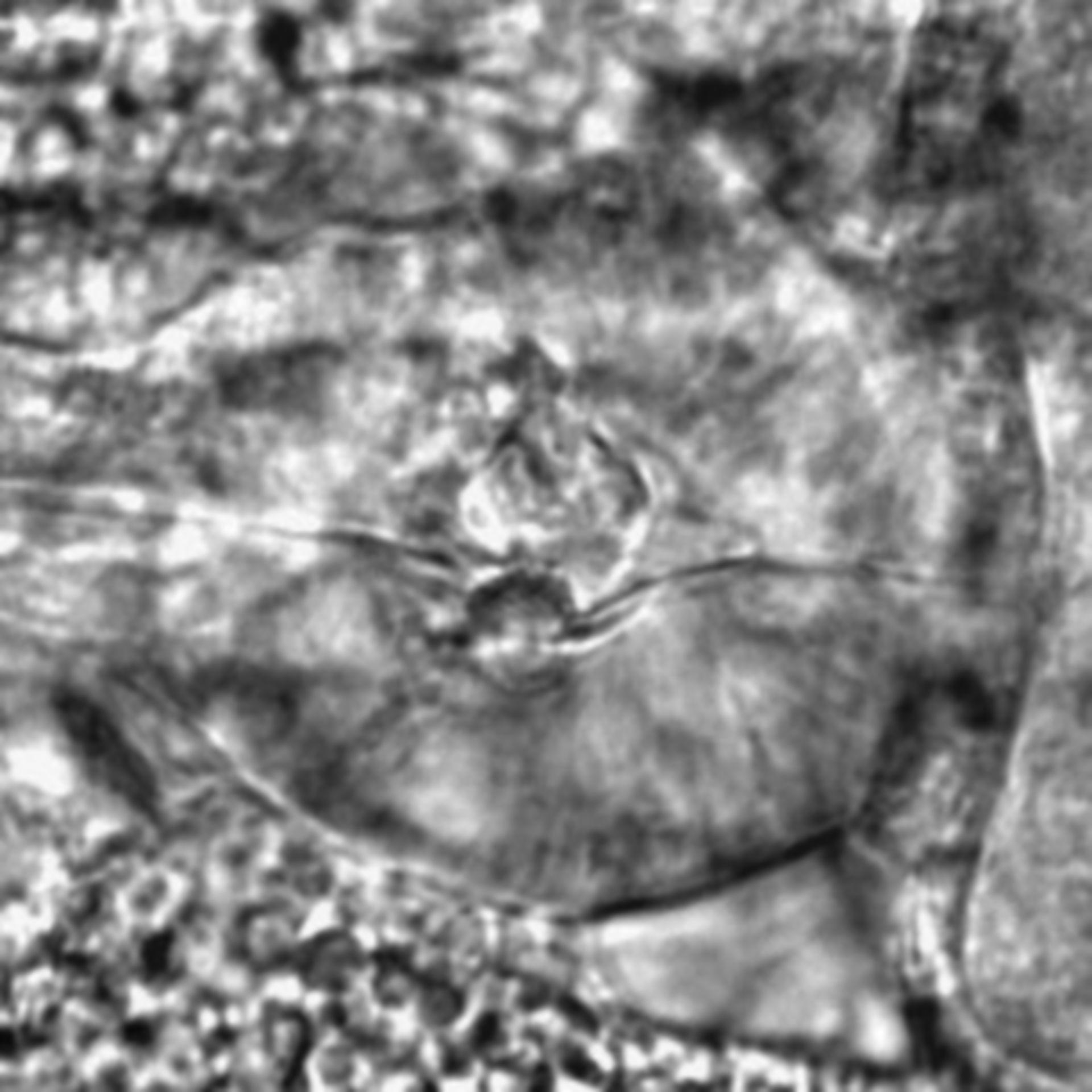 Caenorhabditis elegans - CIL:2181