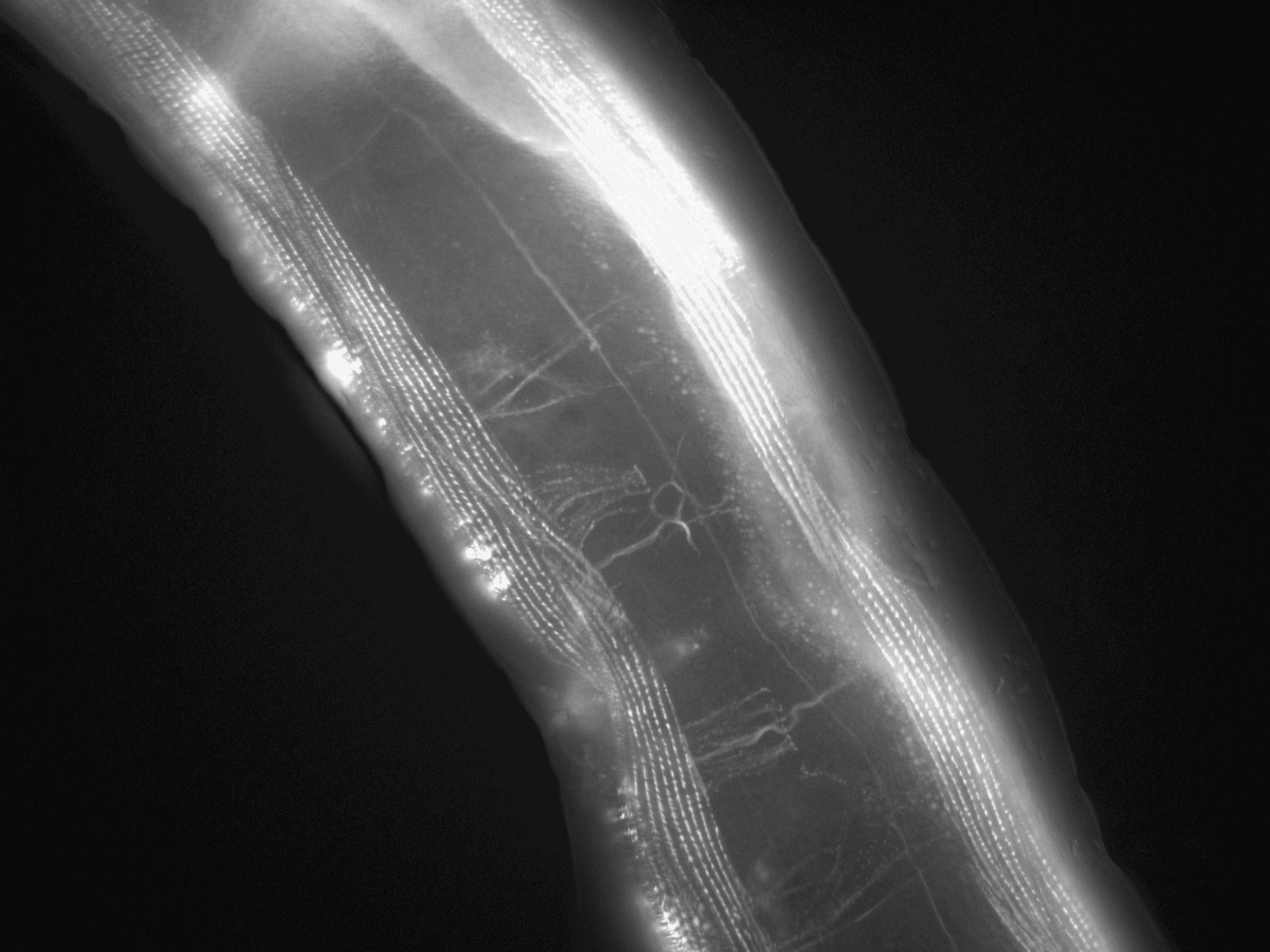 Caenorhabditis elegans (Actin filament) - CIL:1153