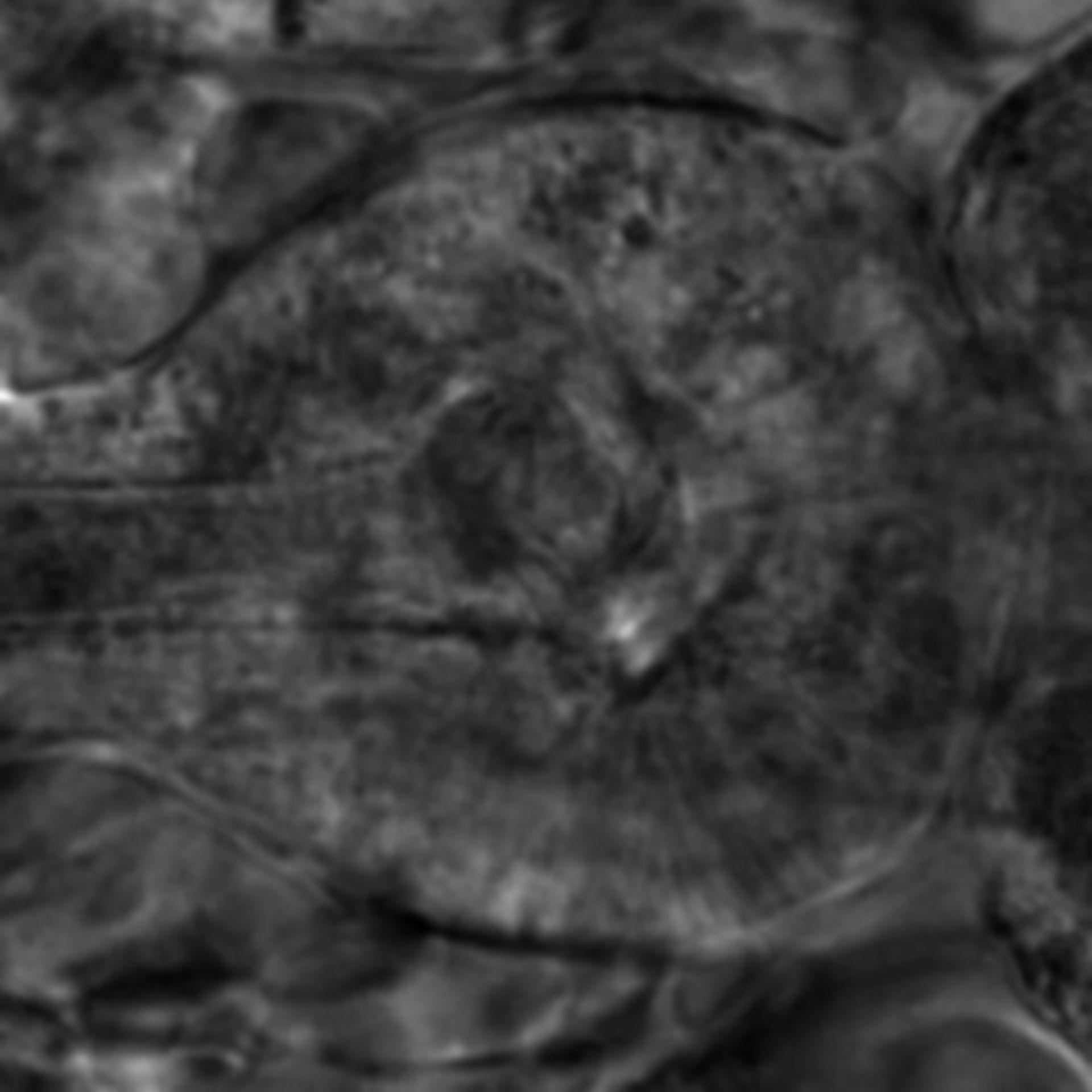 Caenorhabditis elegans - CIL:2654