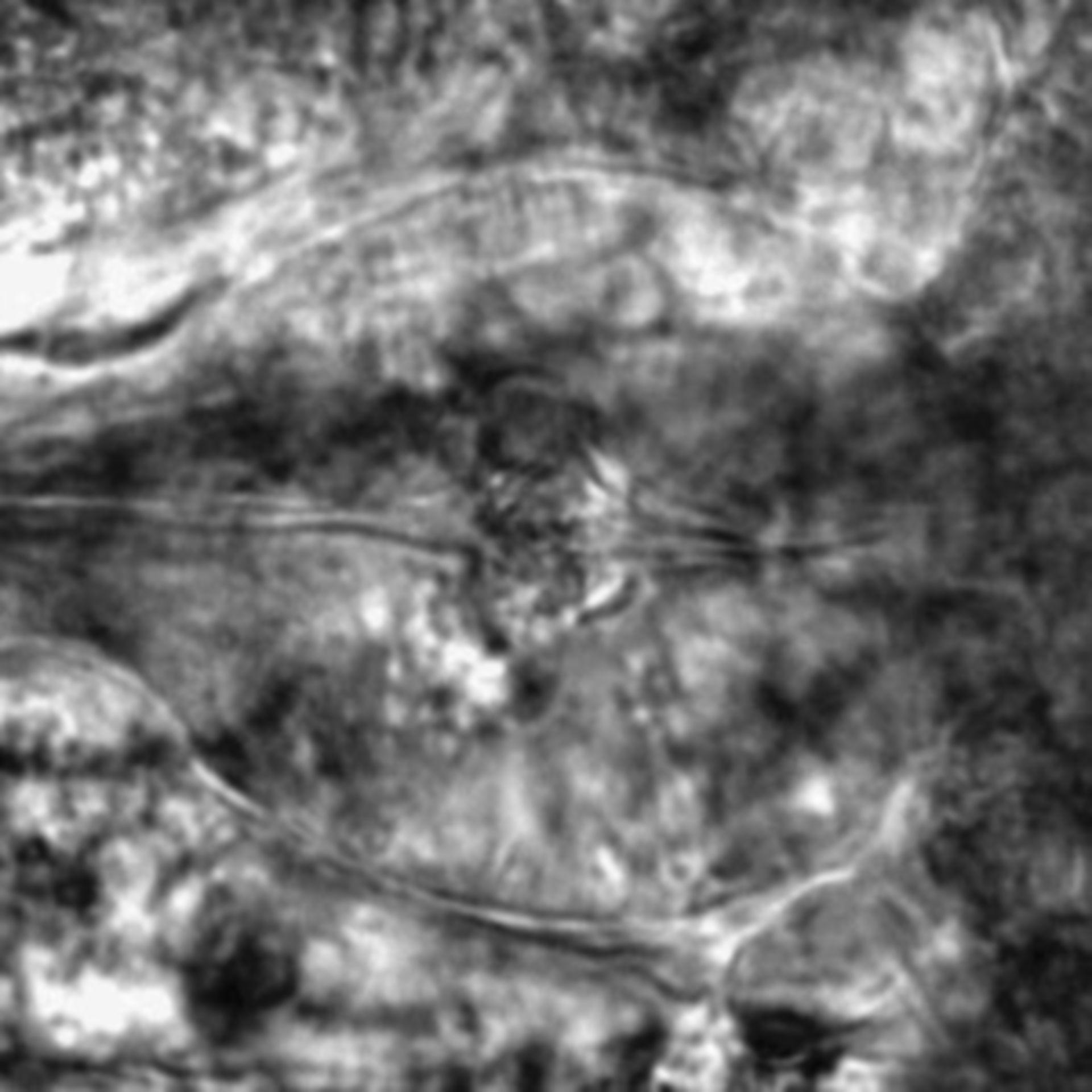 Caenorhabditis elegans - CIL:2134