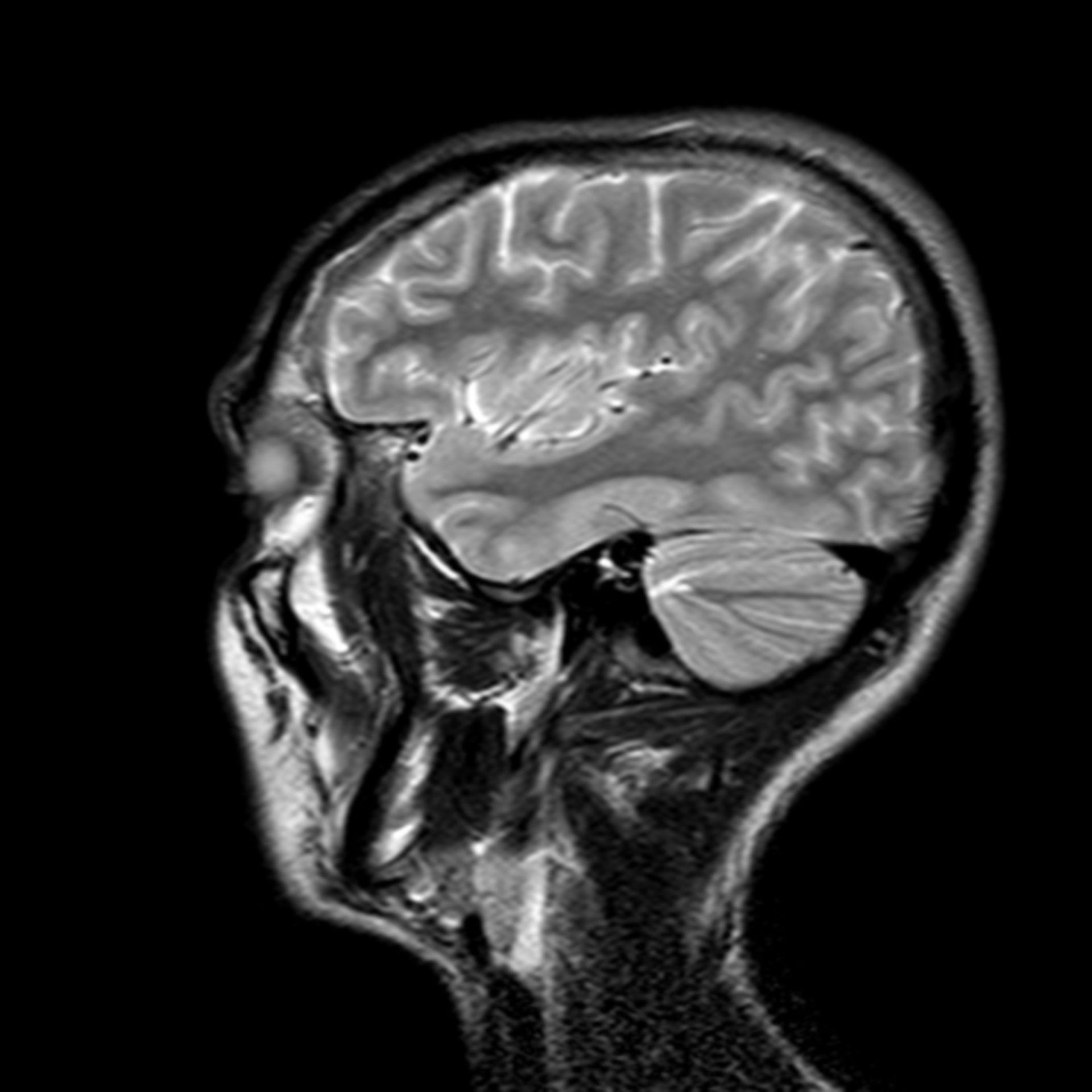 (26/34) MRT Schädel in Sagittalebene, T₂‐gewichtet