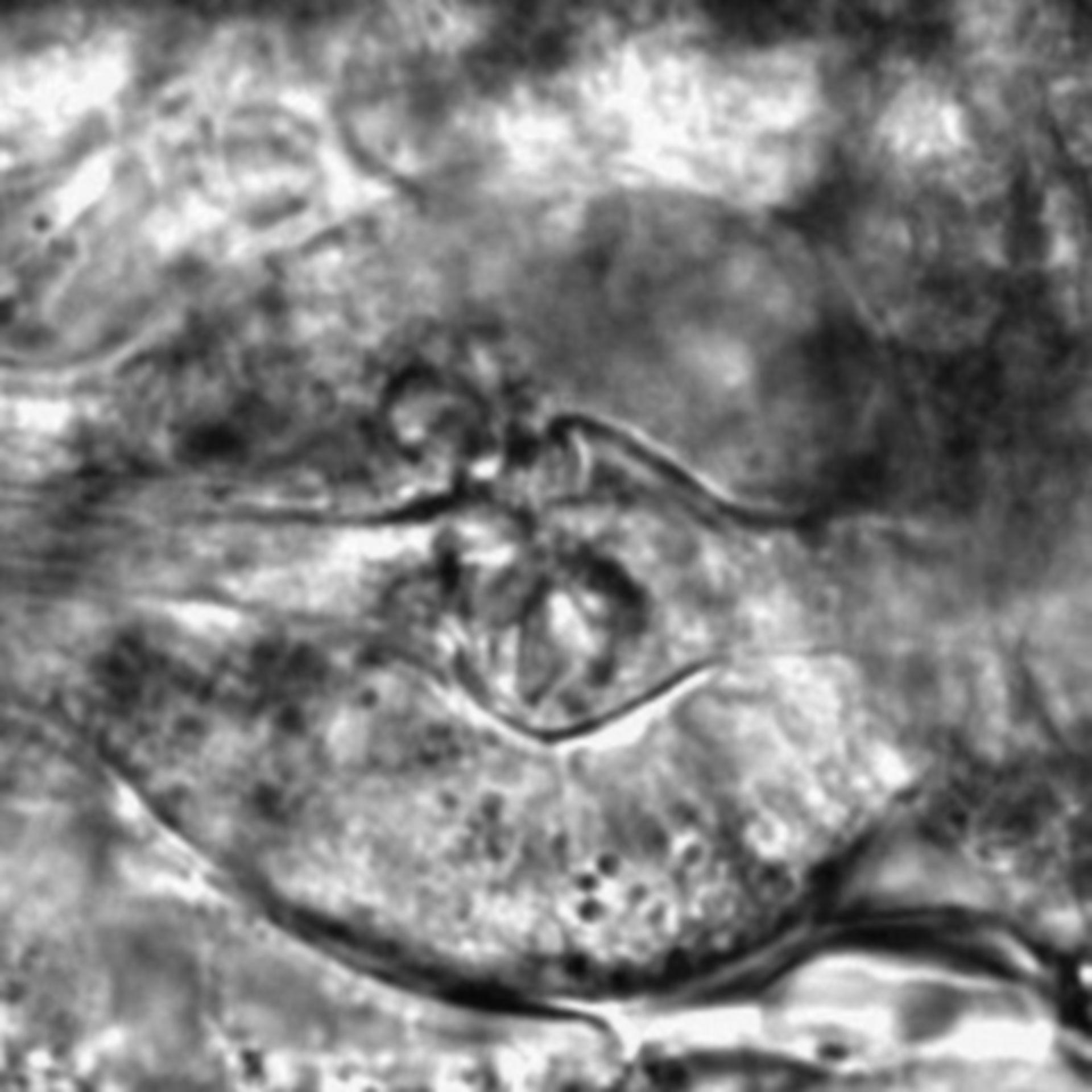 Caenorhabditis elegans - CIL:2745