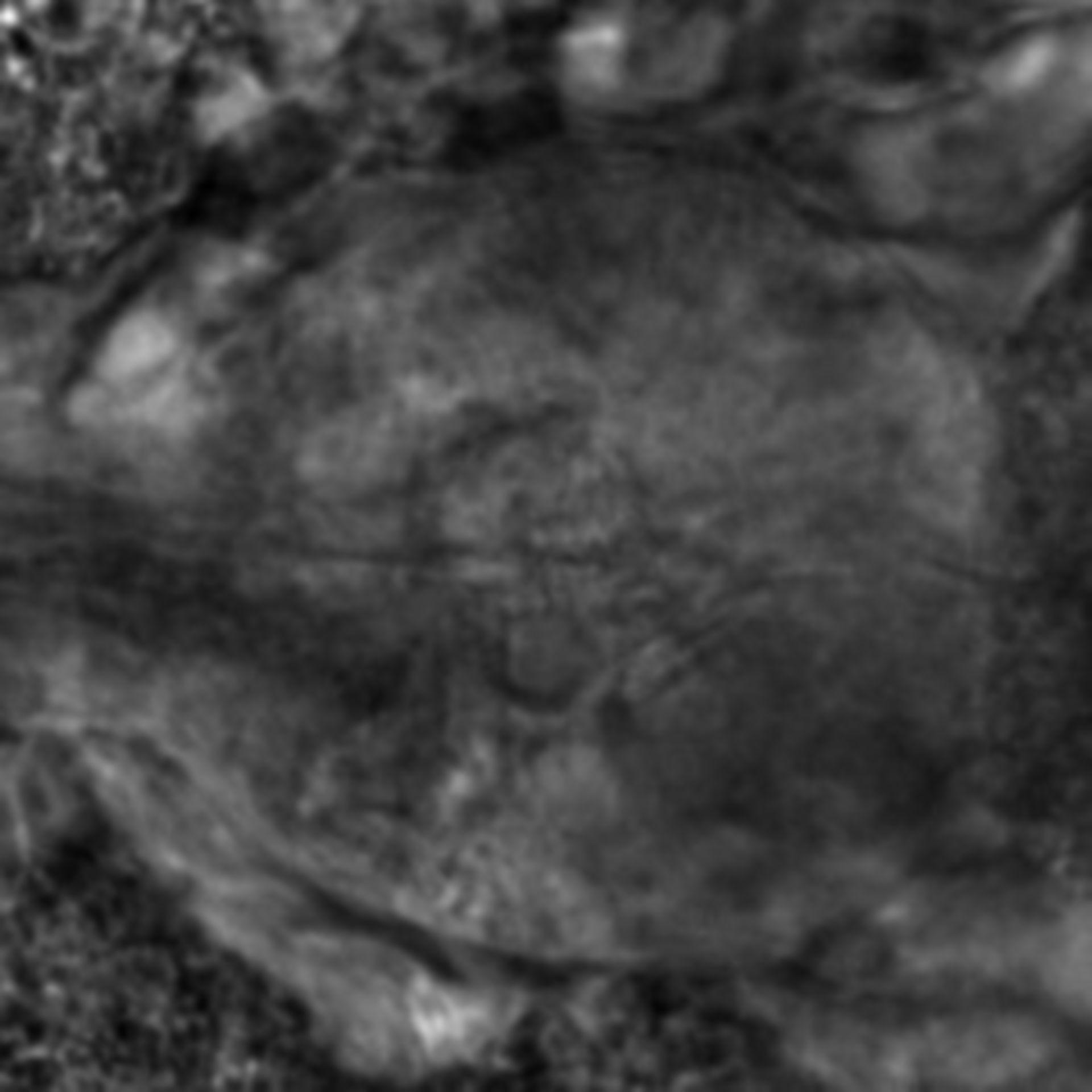 Caenorhabditis elegans - CIL:2664