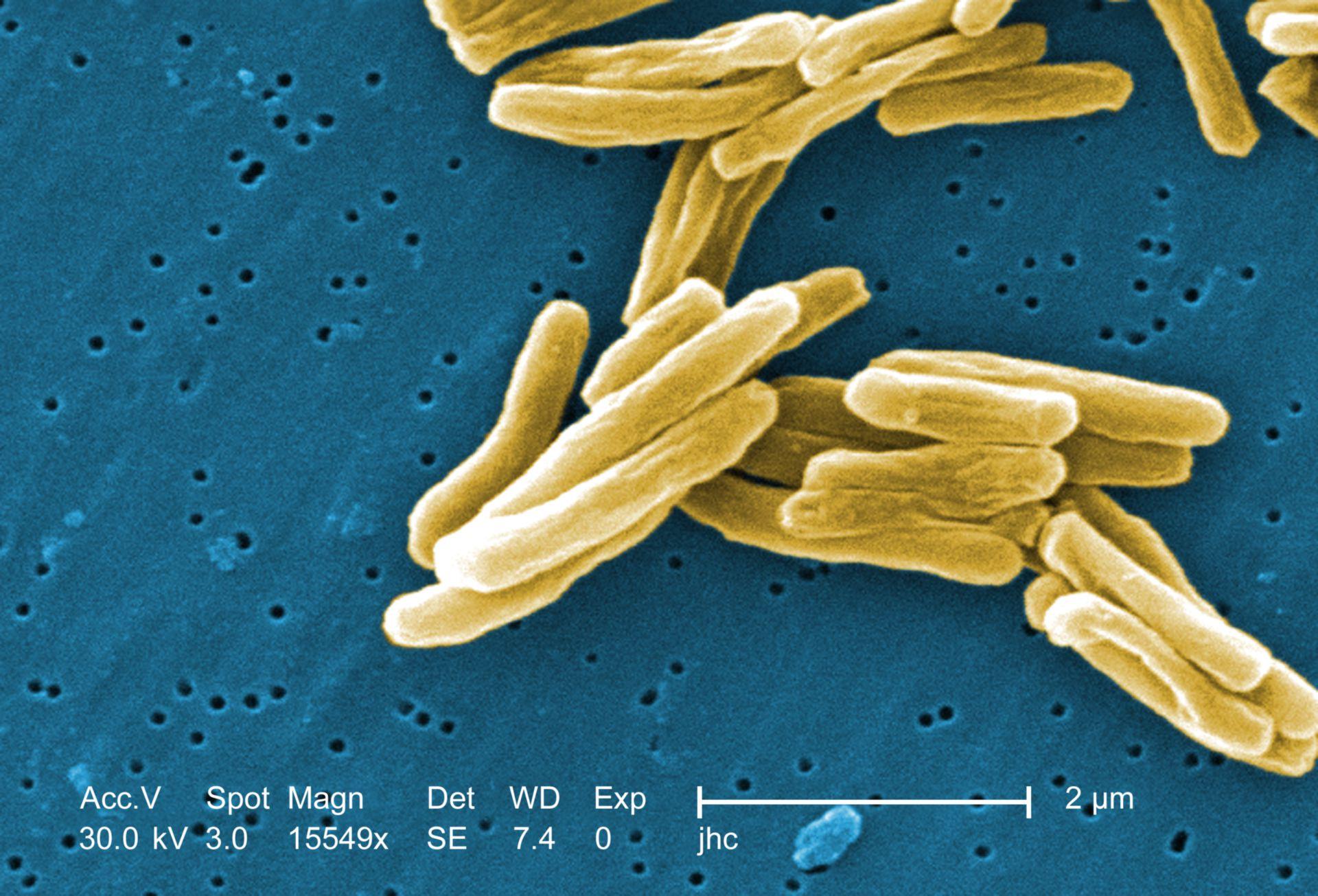 Mycobacterium tuberculosis (Rasterelektronenmikroskop)