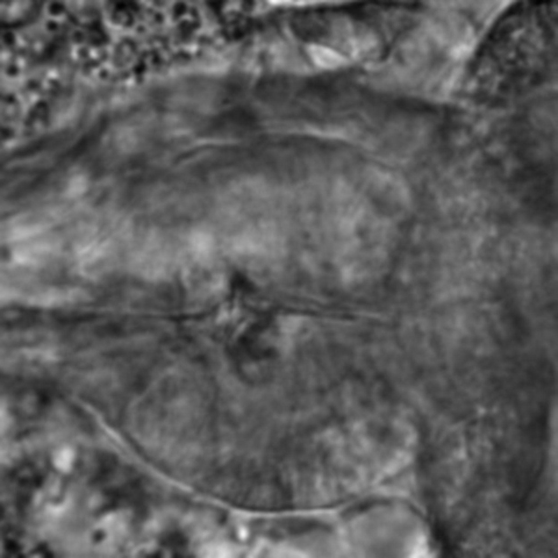 Caenorhabditis elegans - CIL:1761