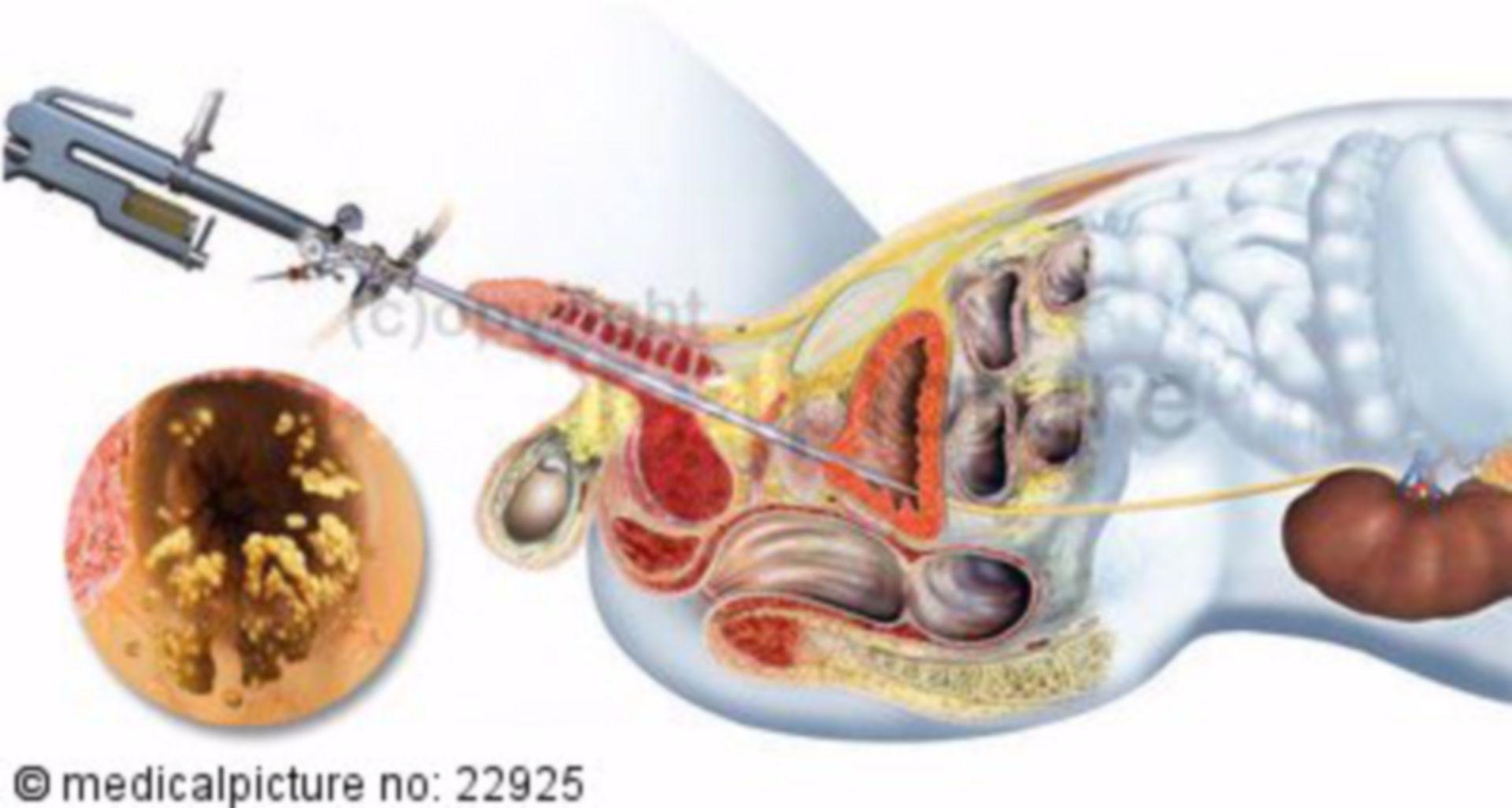 Rimozione ureteroscopica di calcoli ureterali, parte inferiore del corpo maschile