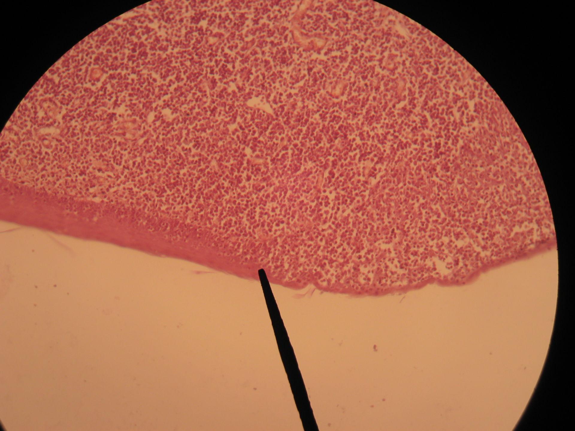 Gaumenmandel des Hundes (2) - modifiziertes Epithel