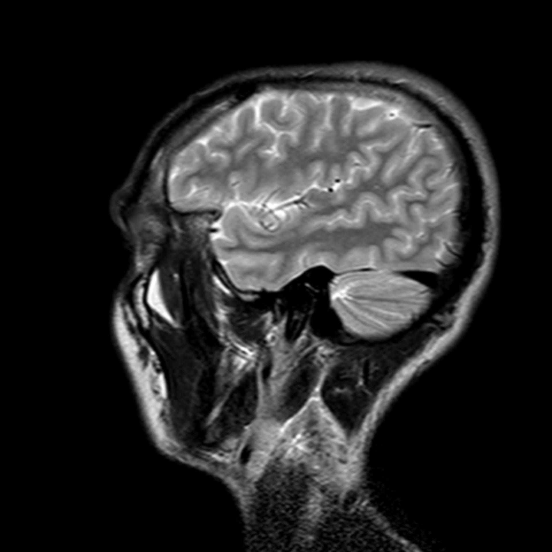 (27/34) MRT Schädel in Sagittalebene, T₂‐gewichtet