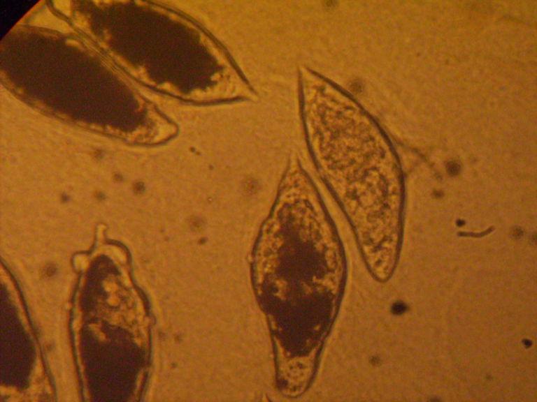 schistosomiasis doccheck