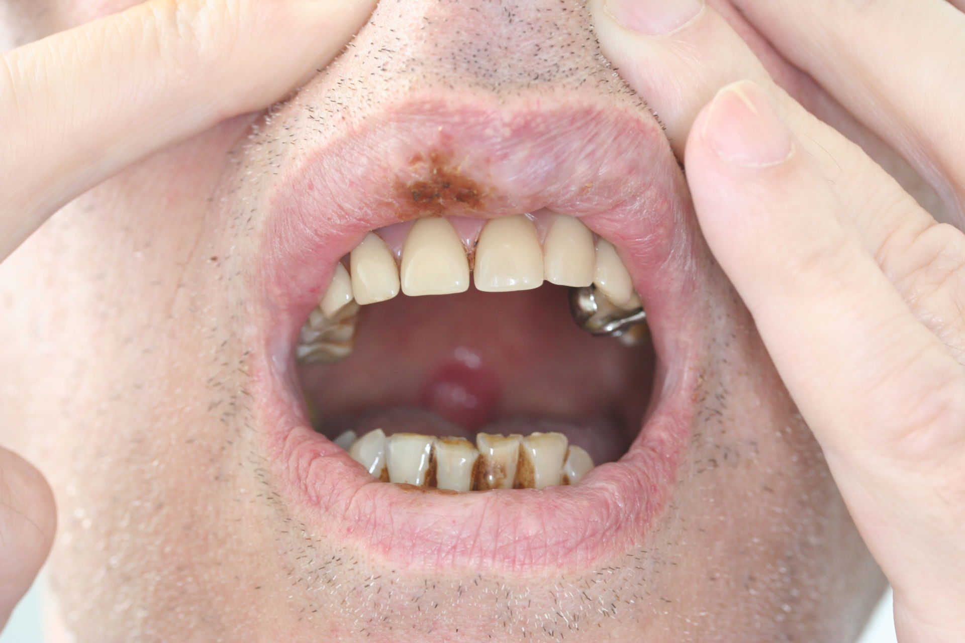 Labbra e denti danni in un accanito fumatore