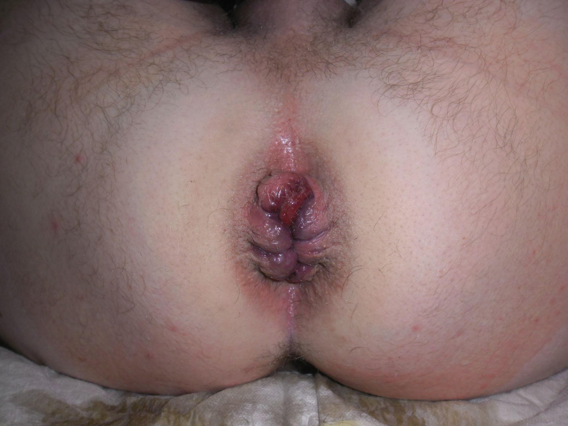 Do i have hemorrhoids or bowel cancer