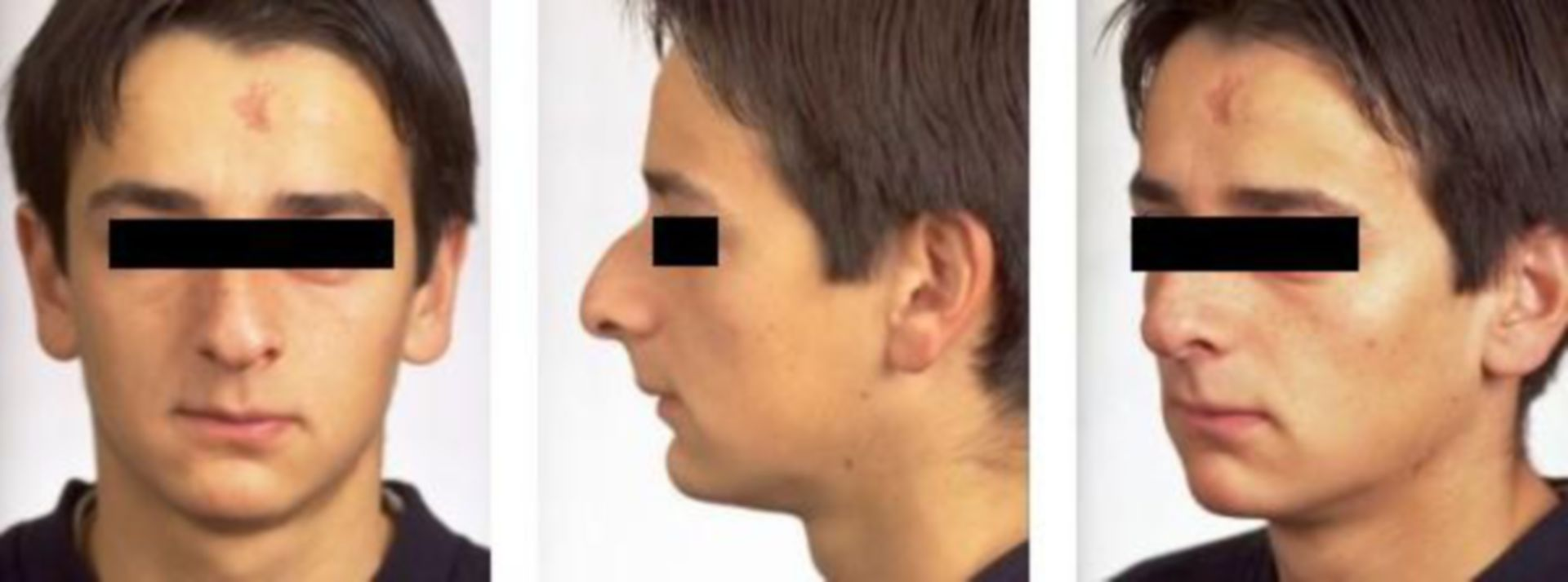 Before nose correction